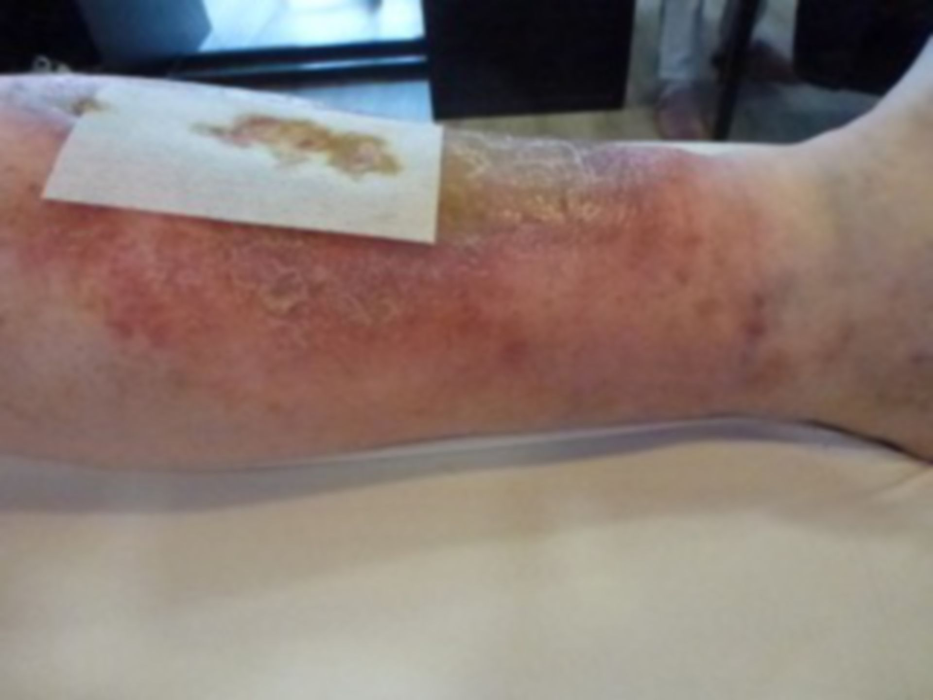 Úlcera de la pierna - abierta por 20 años: no compresión (4)