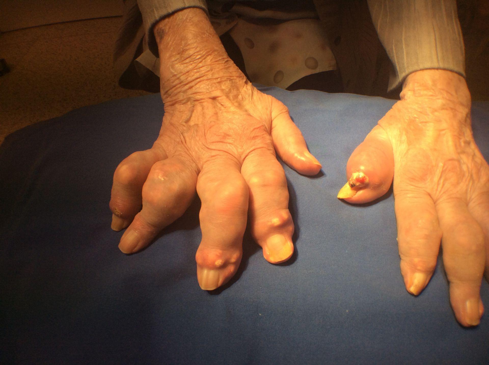 Arthritis urica-gichttophi