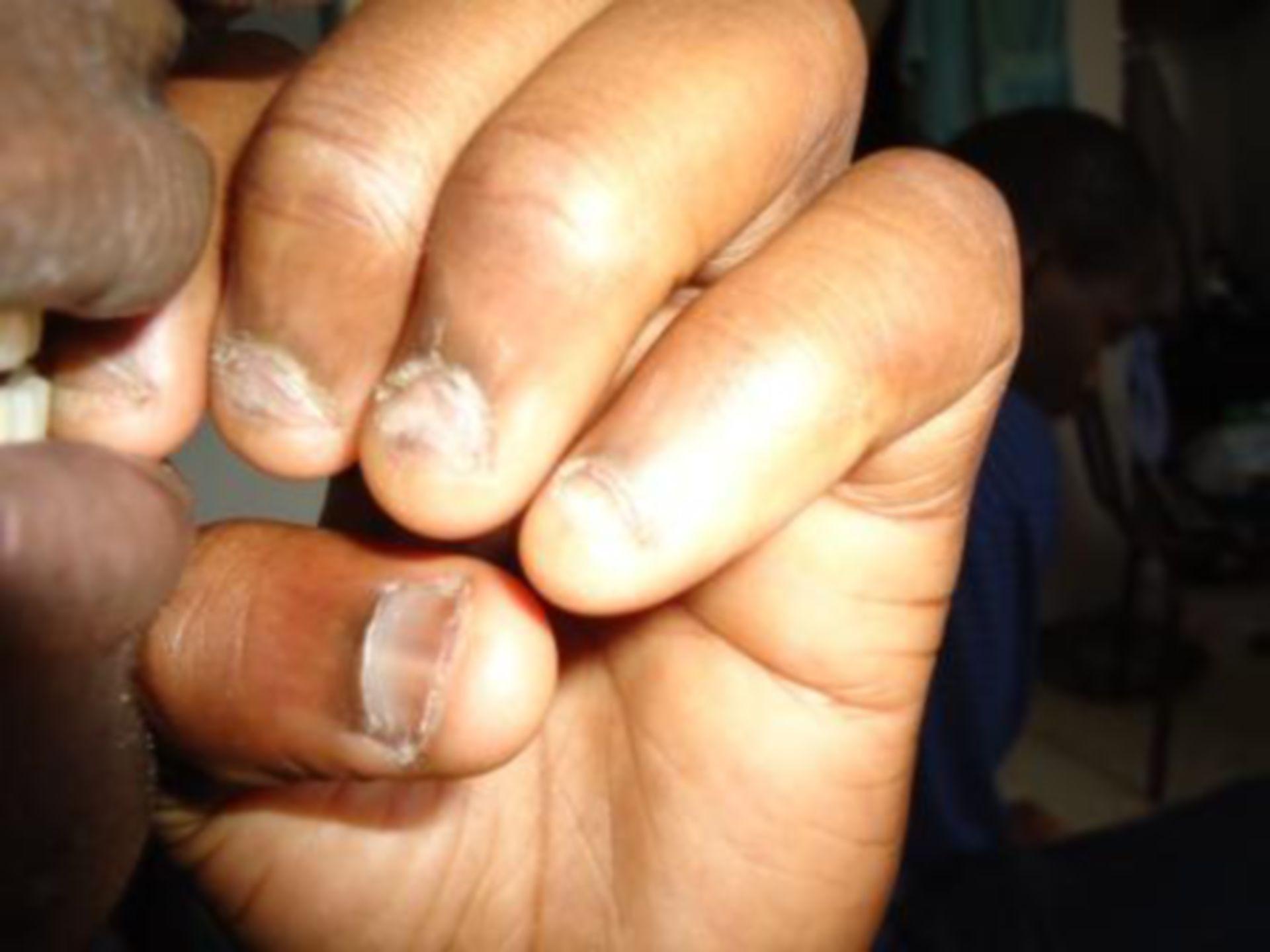Onychophagie: addiction à ronger les ongles