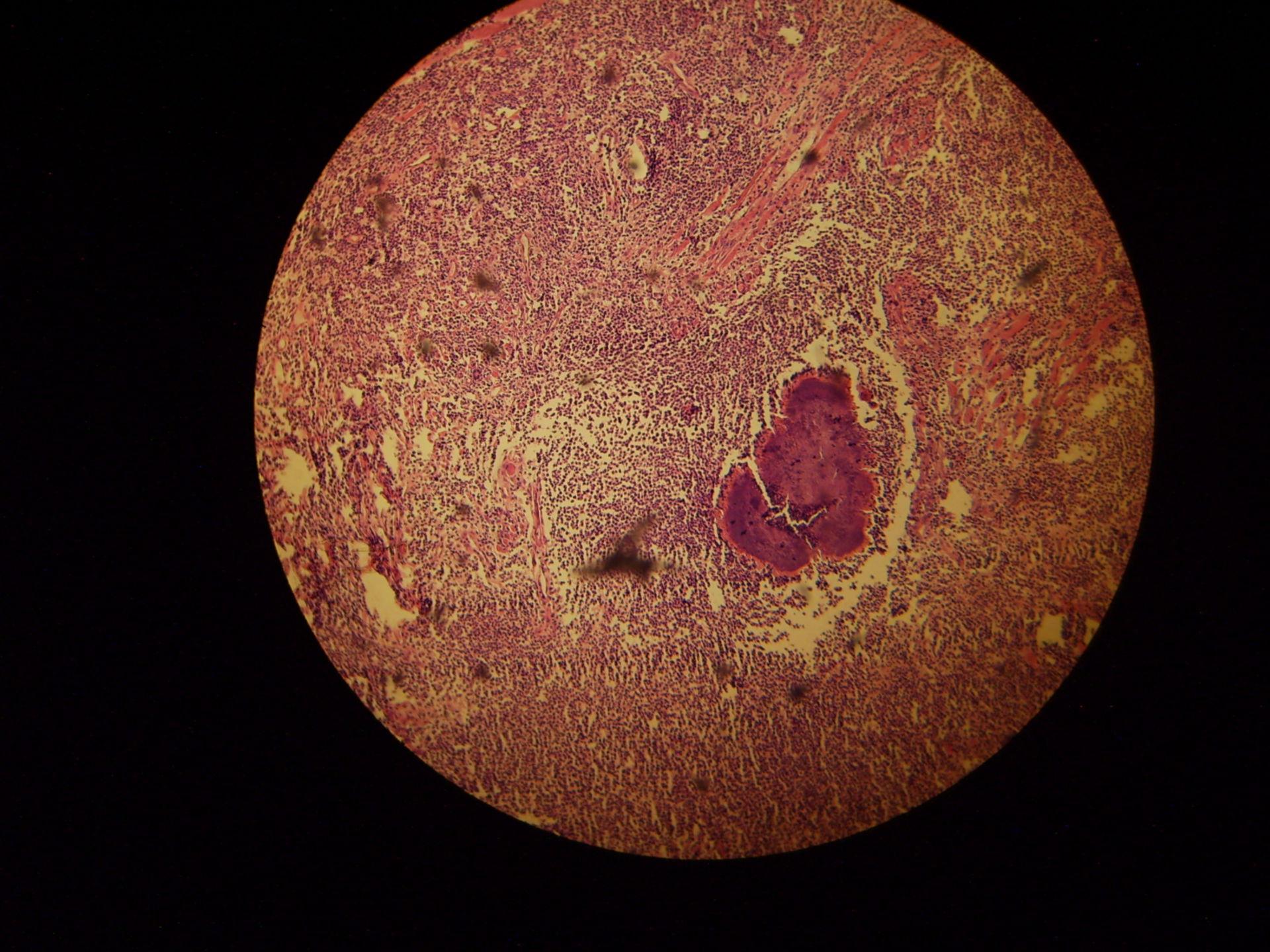 Mycetom aktinokykose