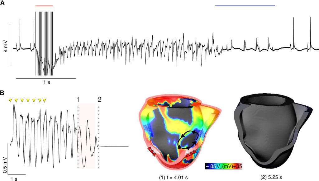 A: Optogenetische Defibrillation (blauer Balken) beendet Rhythmusstörung im Mäuseherz. B: Simulation der optogenetische Defibrillation (roter Balken) im Modell eines menschlichen Herzen. © Tobias Brügmann (Uni Bonn) / Patrick M. Boyle (Johns Hopkins University)