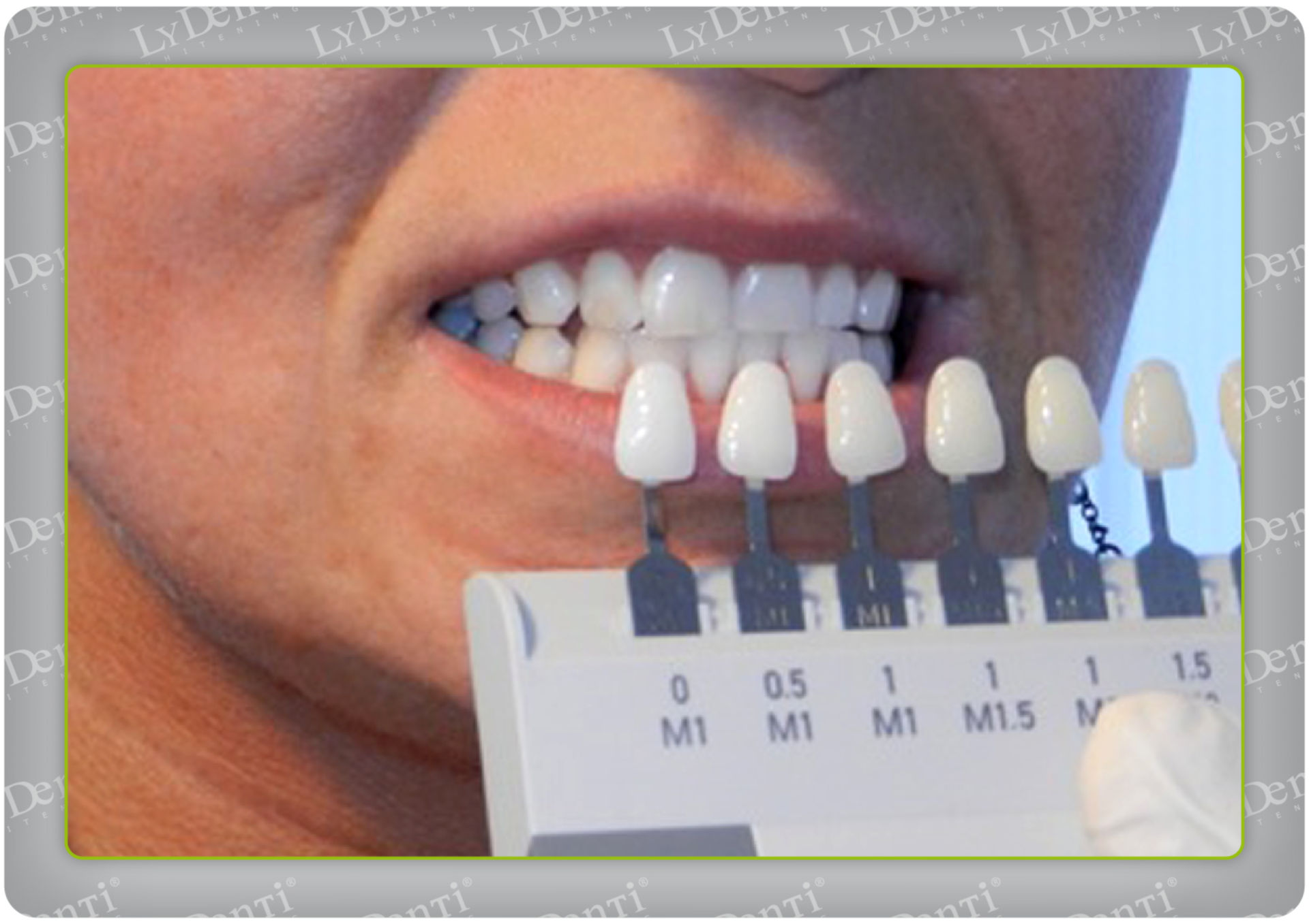 Choosing the color of the tooth (2)