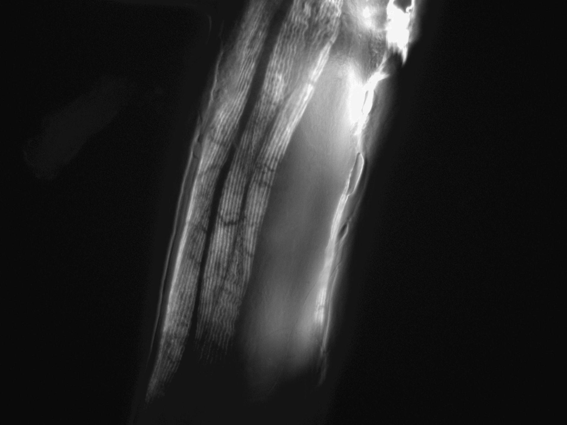 Caenorhabditis elegans (filamento di actina) - CIL:1296