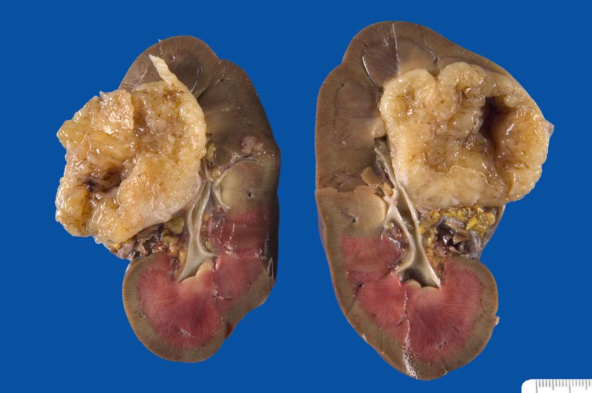 Schwannom der Niere