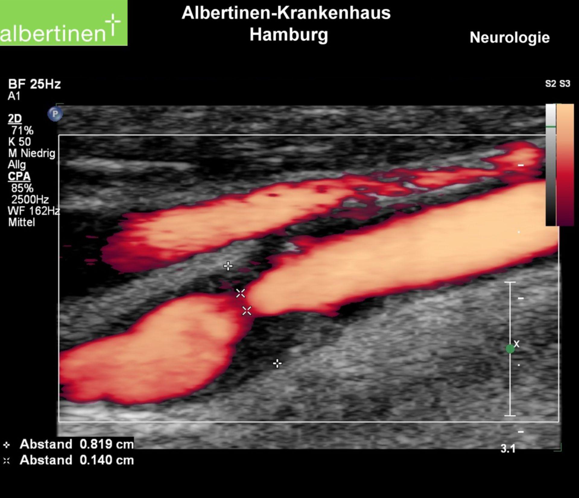 Duplex ultrasonography: stenosis of the right carotid artery