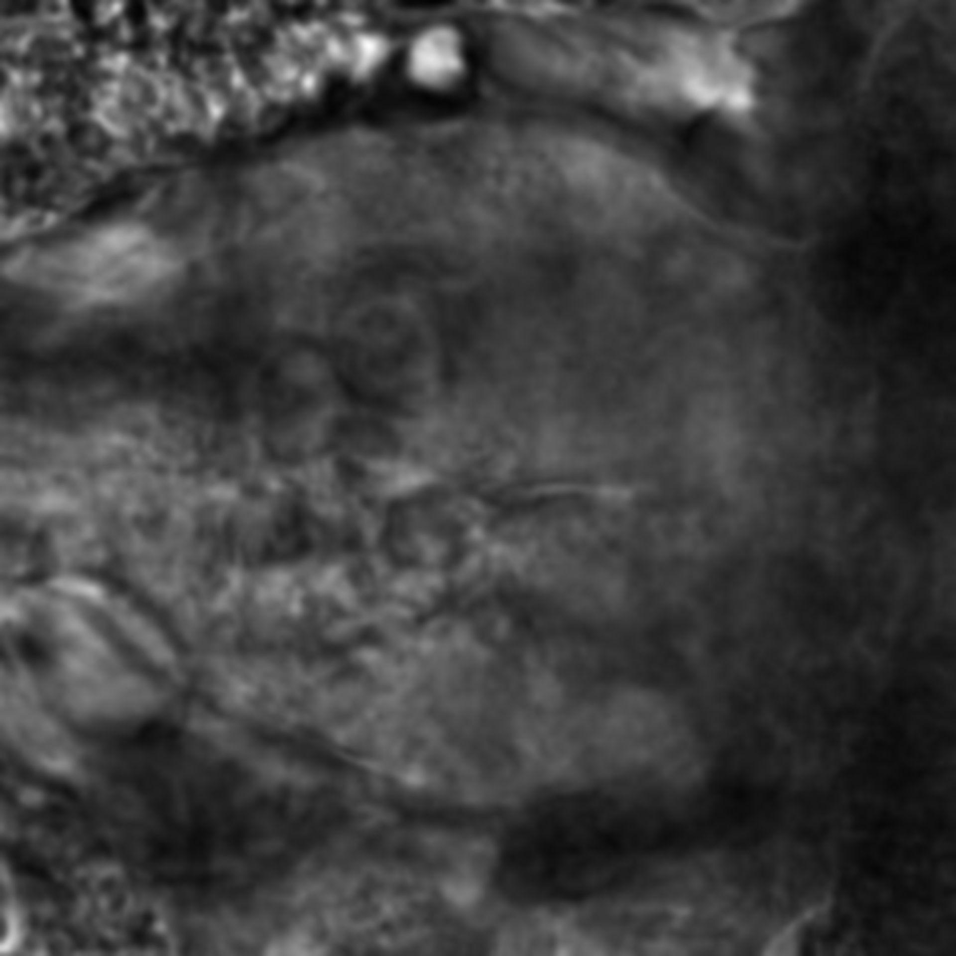 Caenorhabditis elegans - CIL:2226
