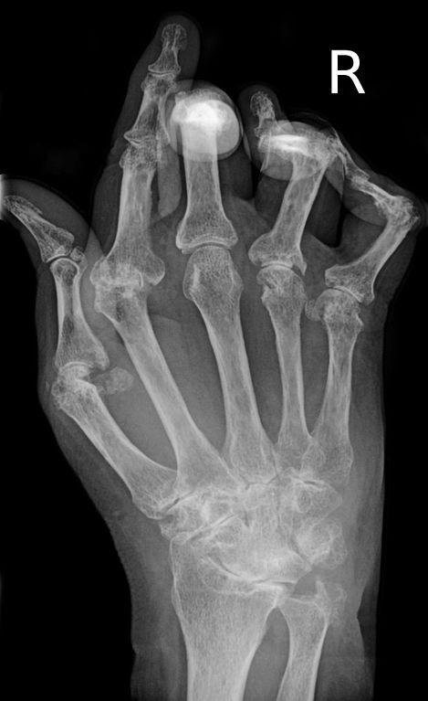 Röntgenbild einer rheumatoiden Arthritis