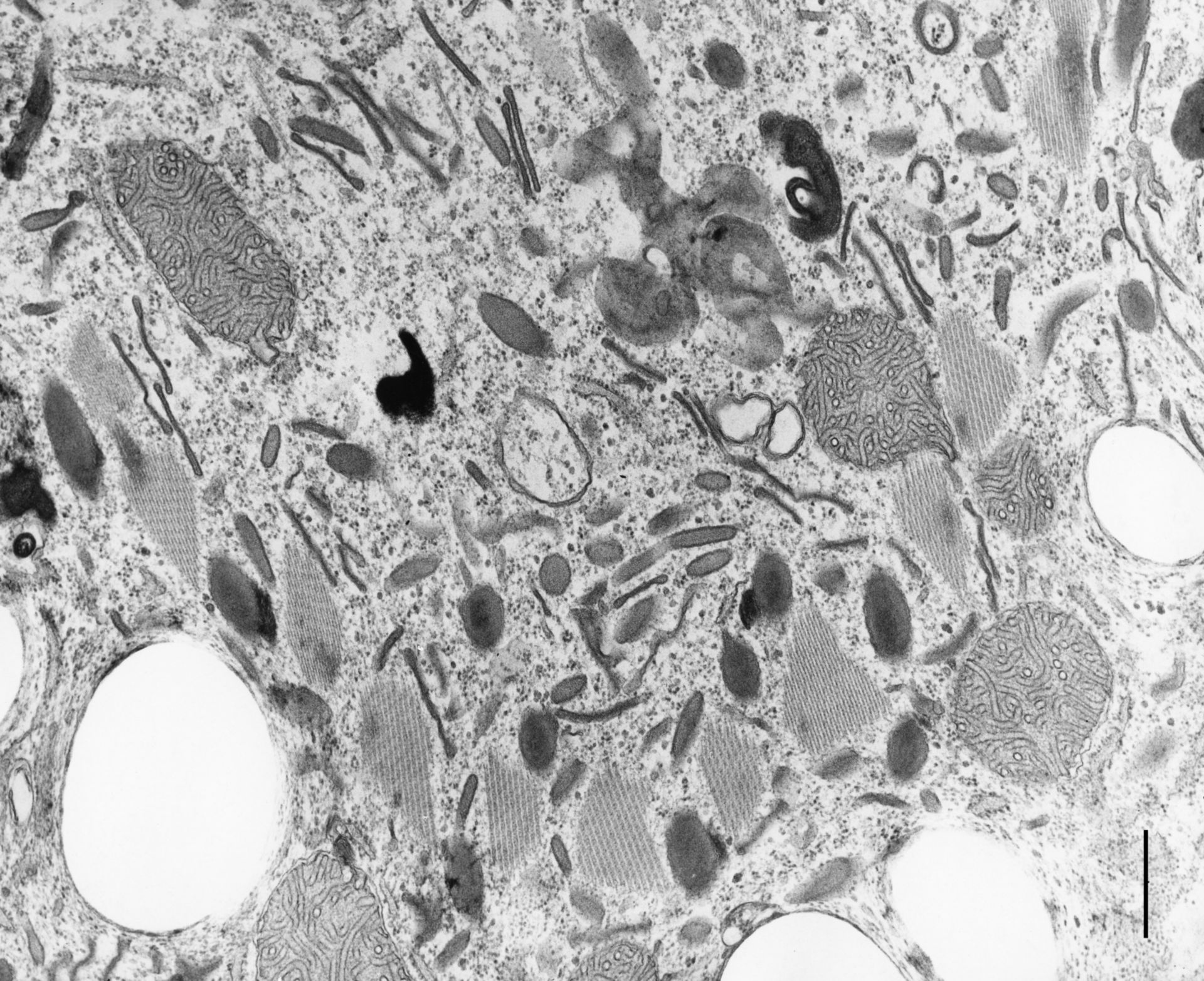 Coleps hirtus (Vacuoli digestivo) - CIL:9709