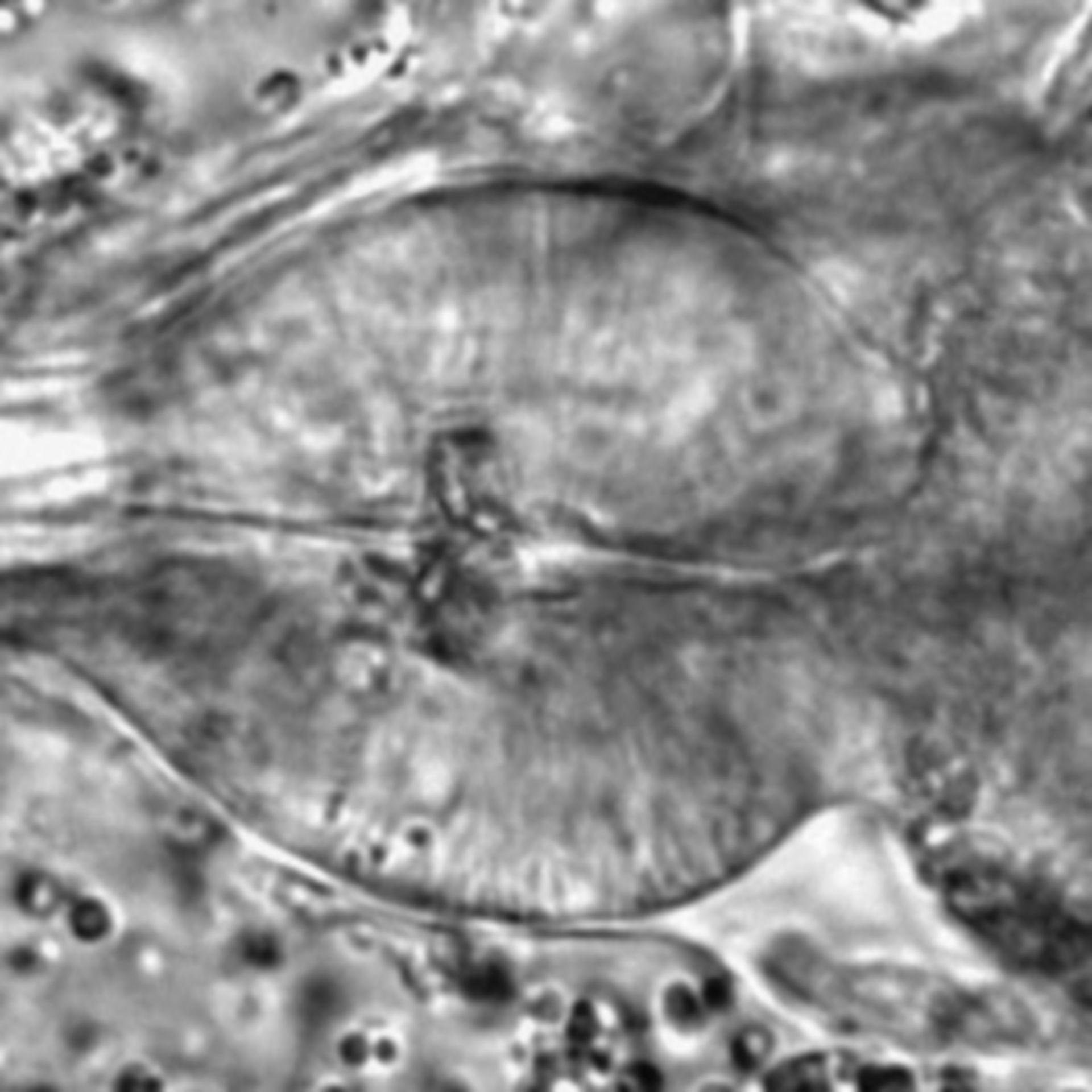 Caenorhabditis elegans - CIL:1702