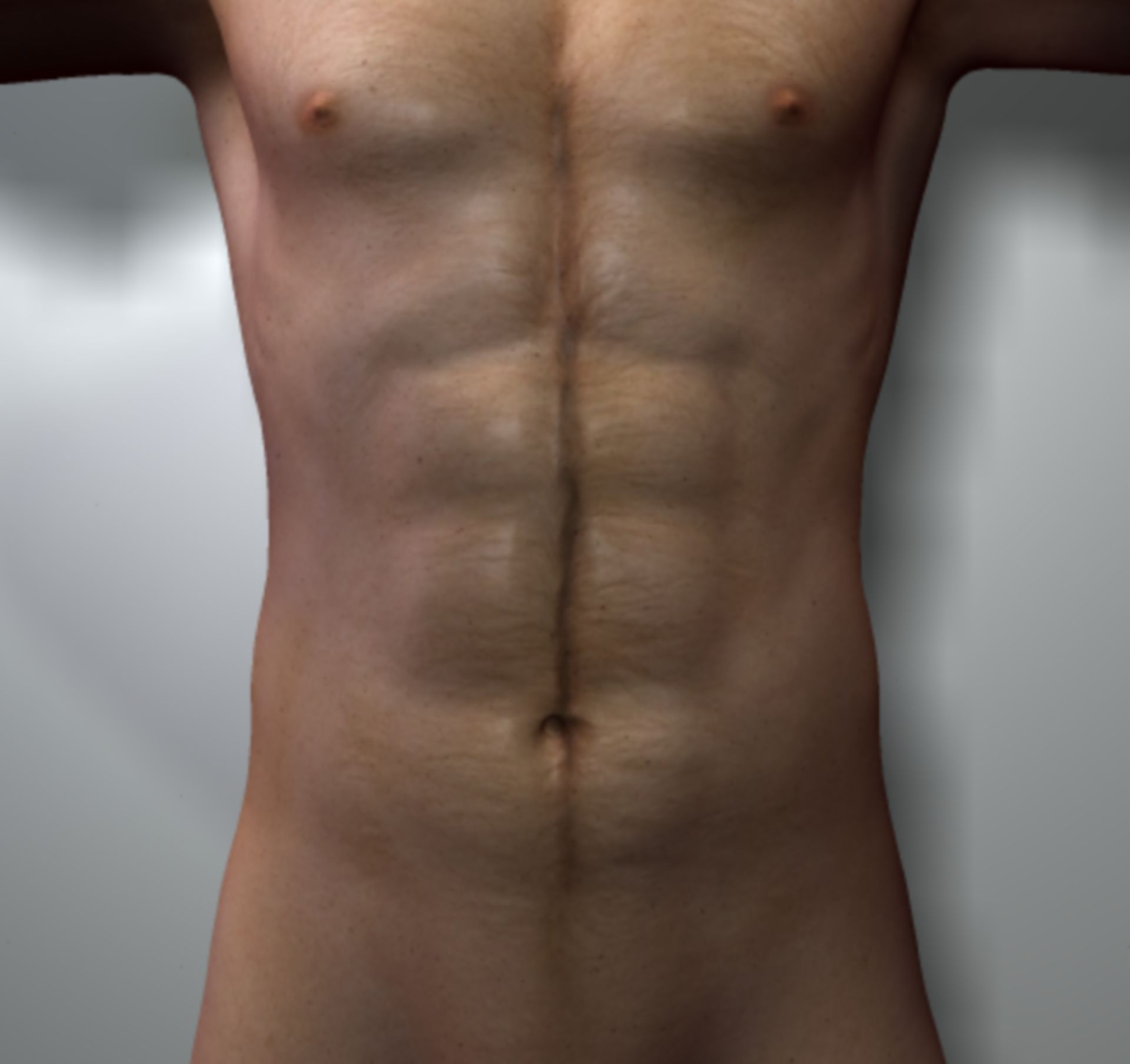 Musculus rectus abdominis