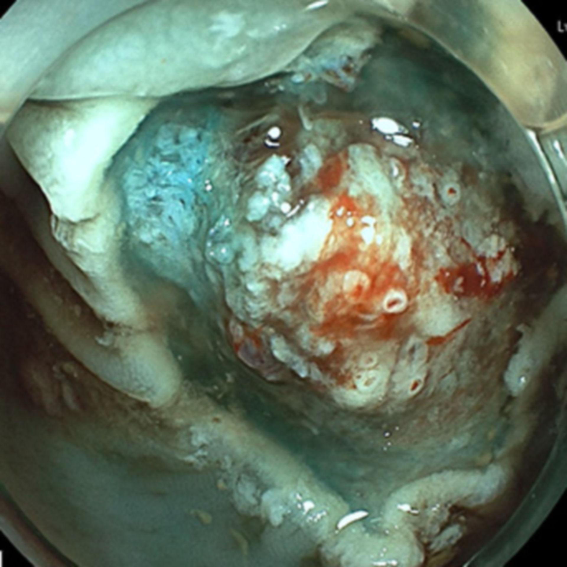 Multiple Gefäßstümpfe nach Polypektomie. Ein Clipverschluß ist nicht immer notwendig.