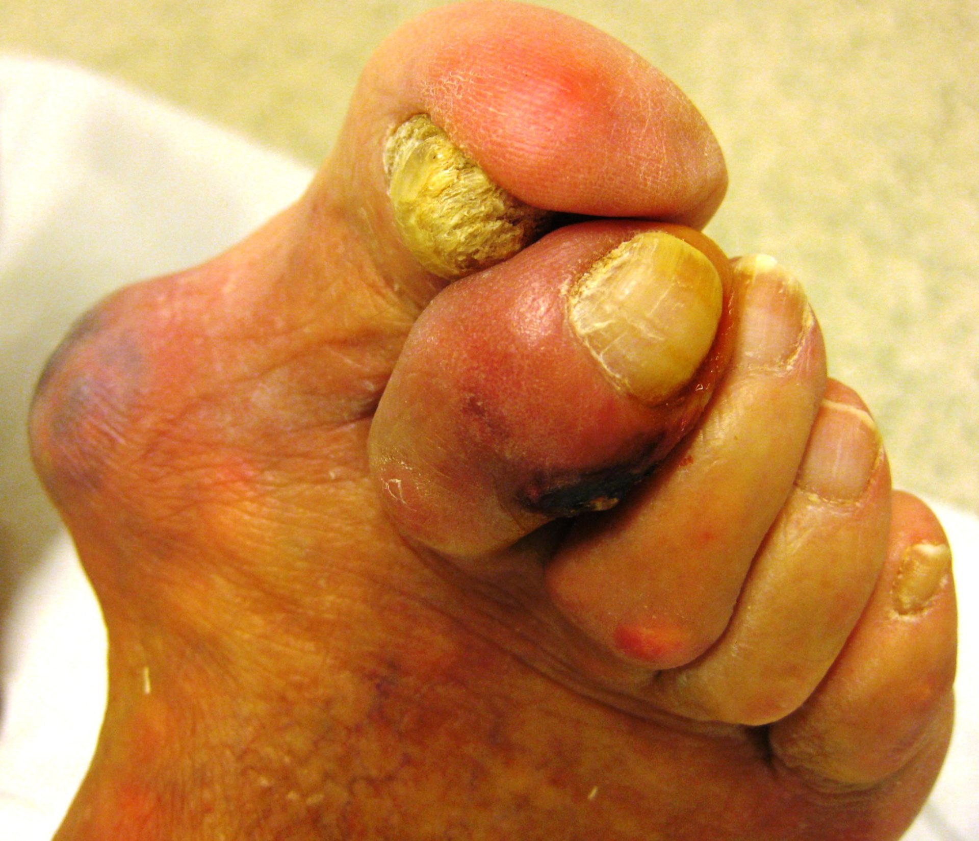 Diabetic foot and gout