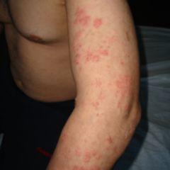 Mann herpes bilder genitalis Herpes genitalis