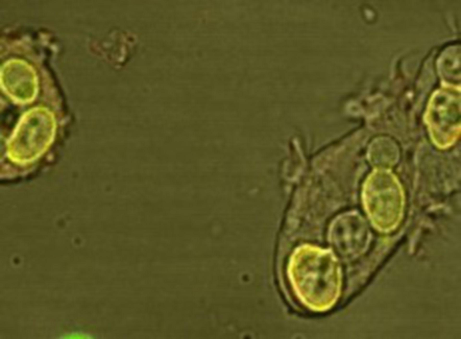Dictyostelium discoideum (vacuolo alimentare) - CIL:7327