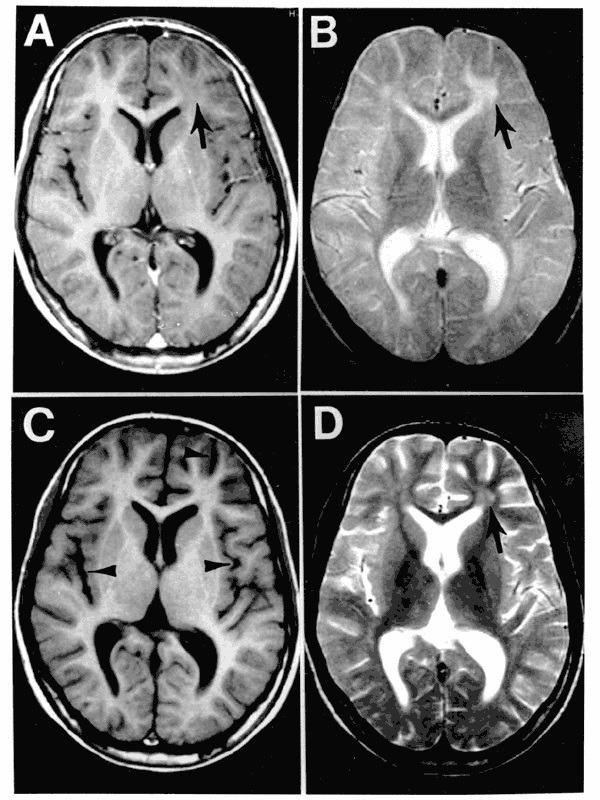 MRT eines Patienten mit subakuter sklerosierender Panenzephalitis im zeitlichen Verlauf