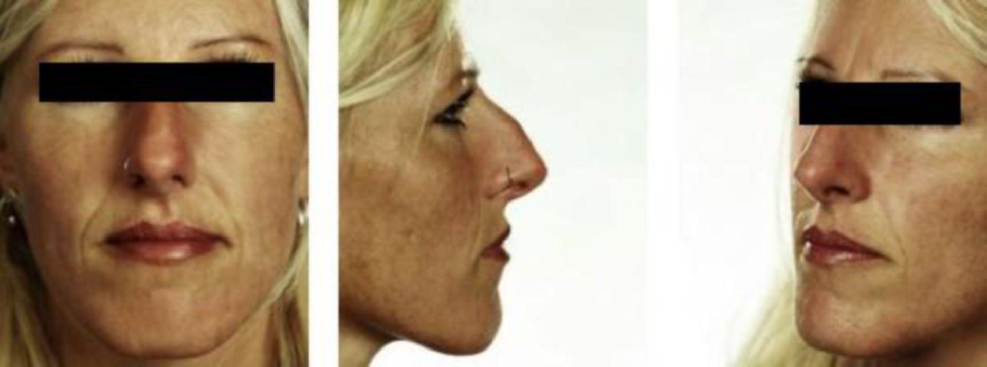 Vor Nasenkorrektur