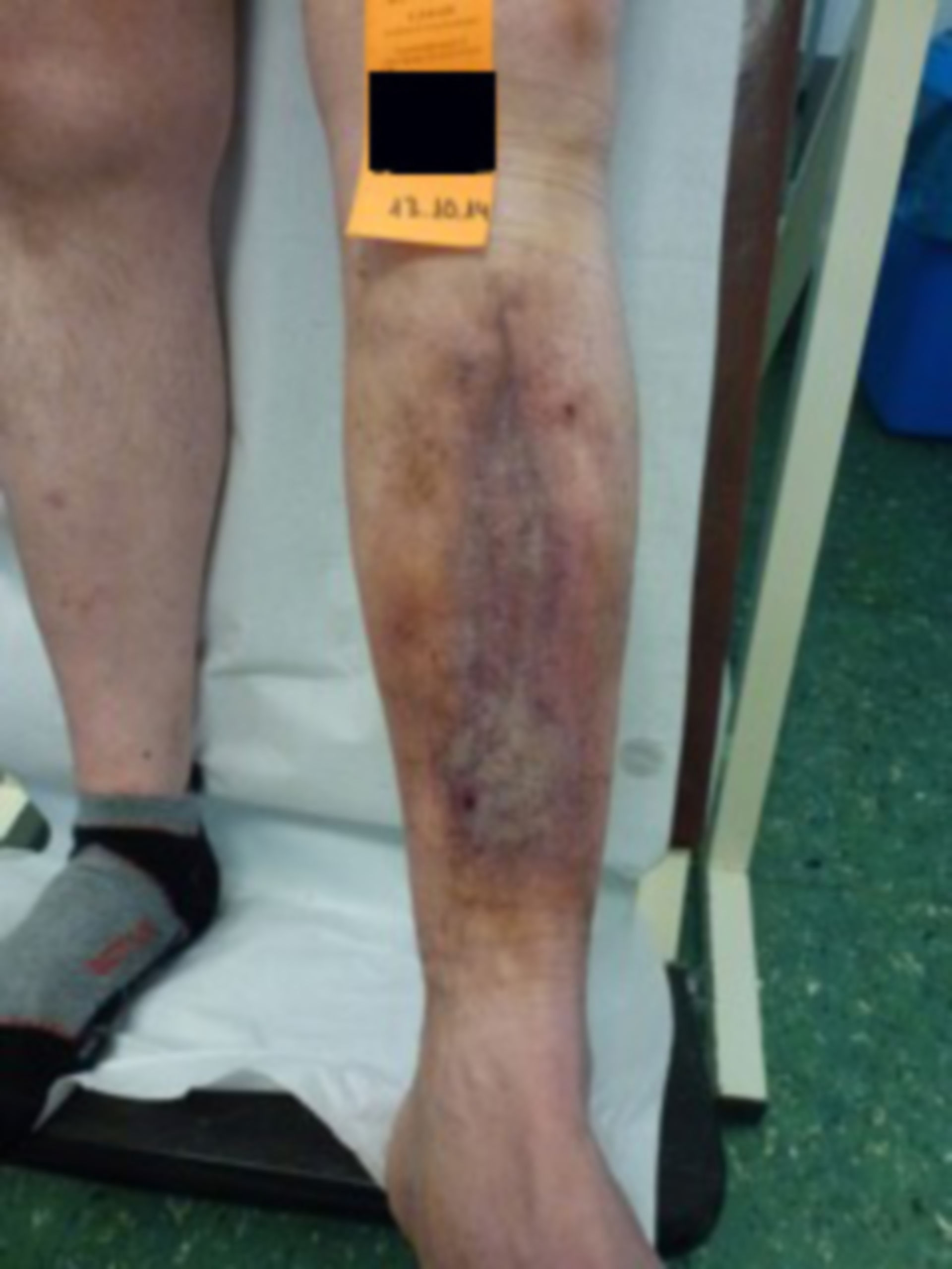 Úlcera de la pierna - abierta por 20 años: IVC (15)