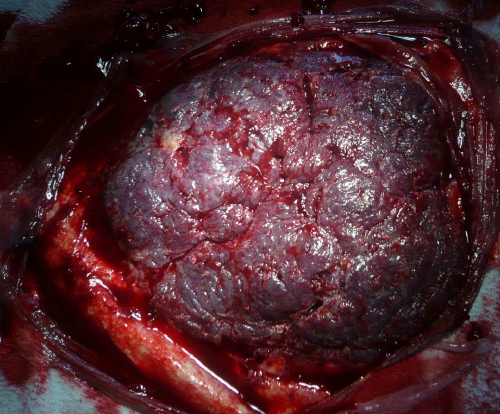 Placenta-del lado materno