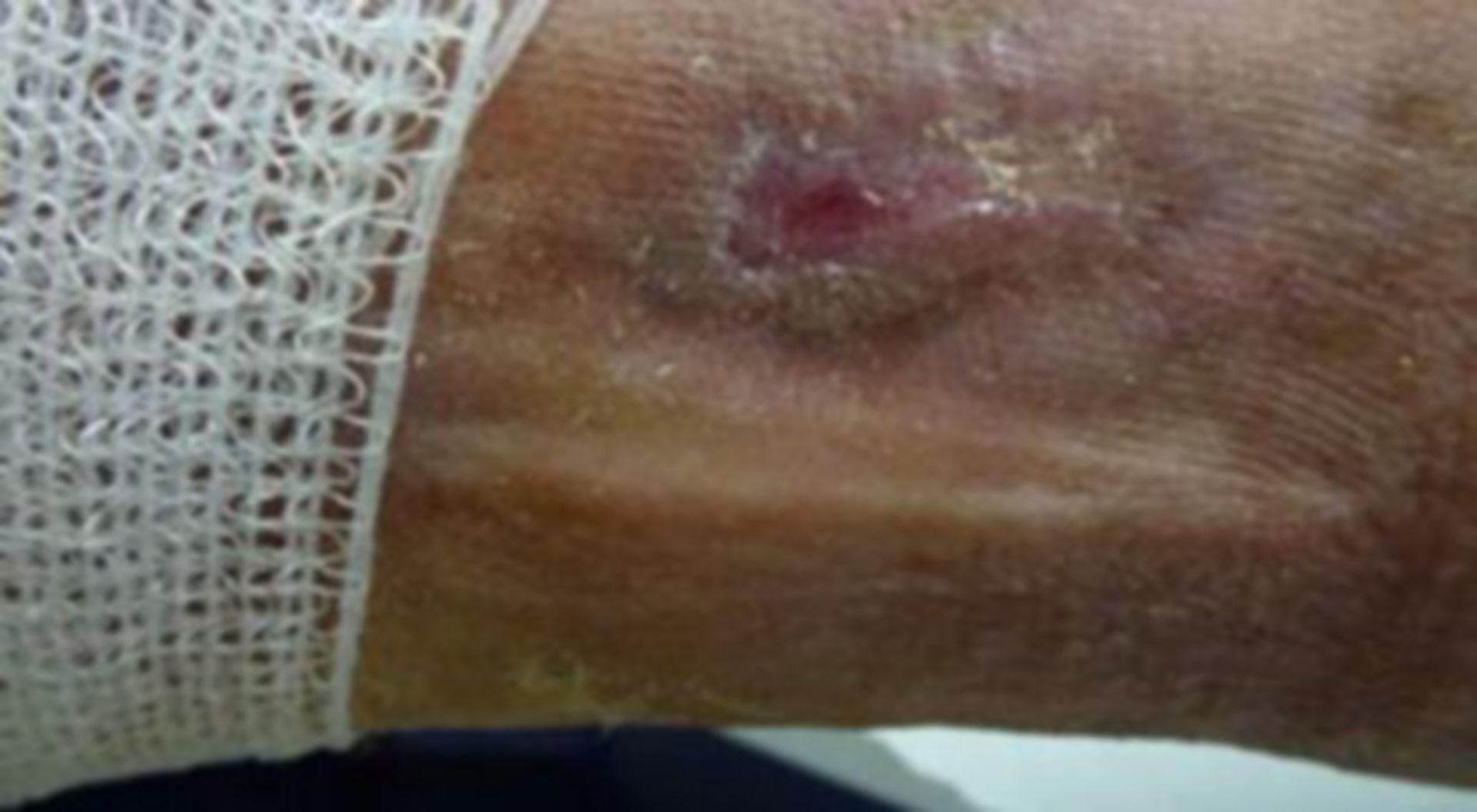Úlcera de la pierna - abierta por 18 meses (11)