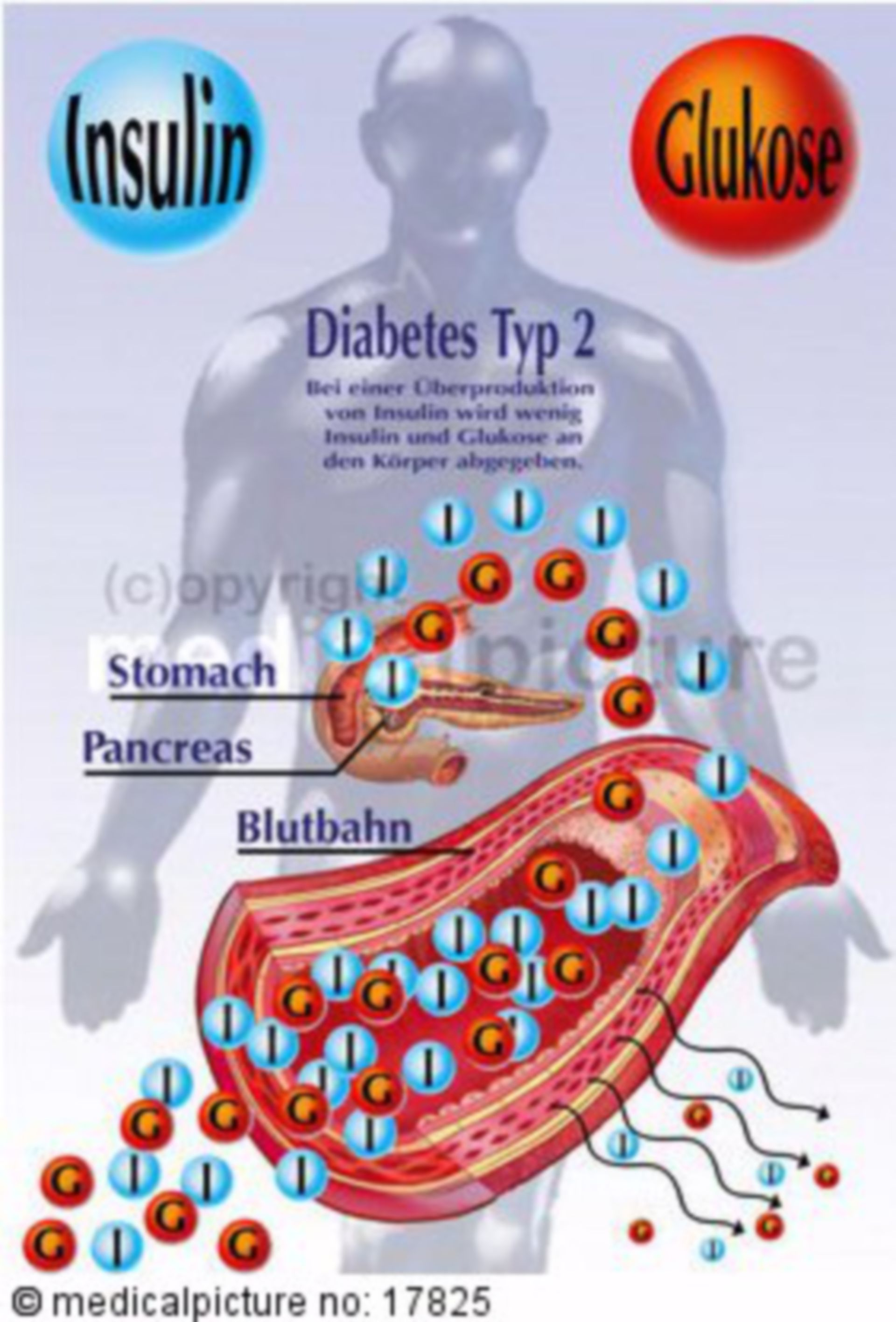 Insulin Secretion in a Human with Type-2-Diabetes