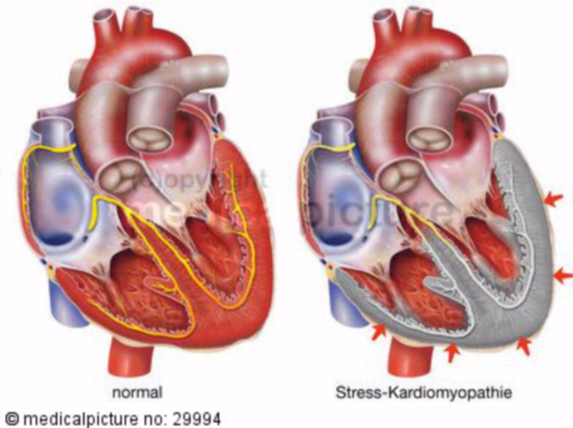 Lo stress cardiomiopatia
