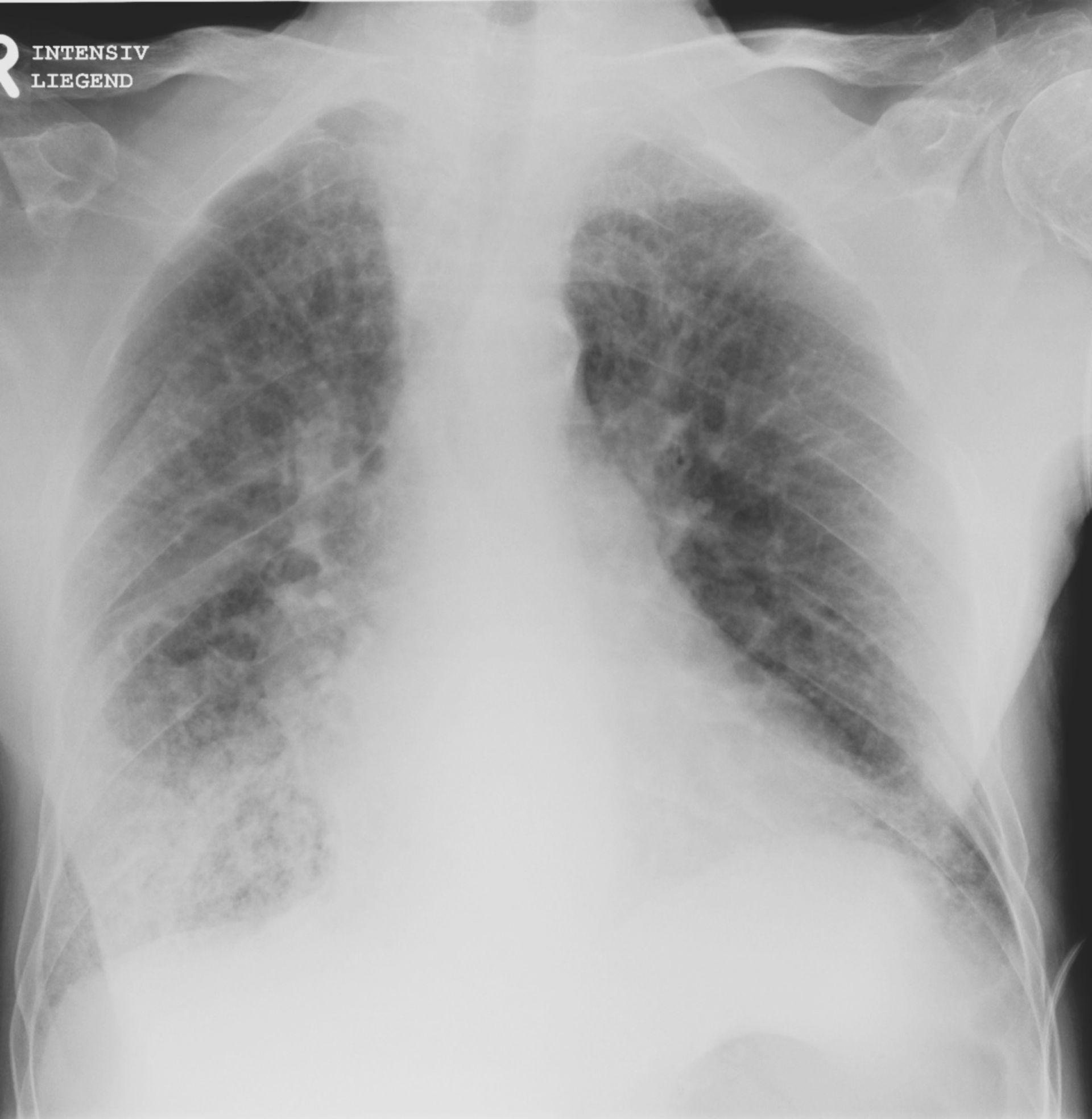 Röntgen des Thorax von a.p. mit einer Stauung der Lunge beidseits perihilär