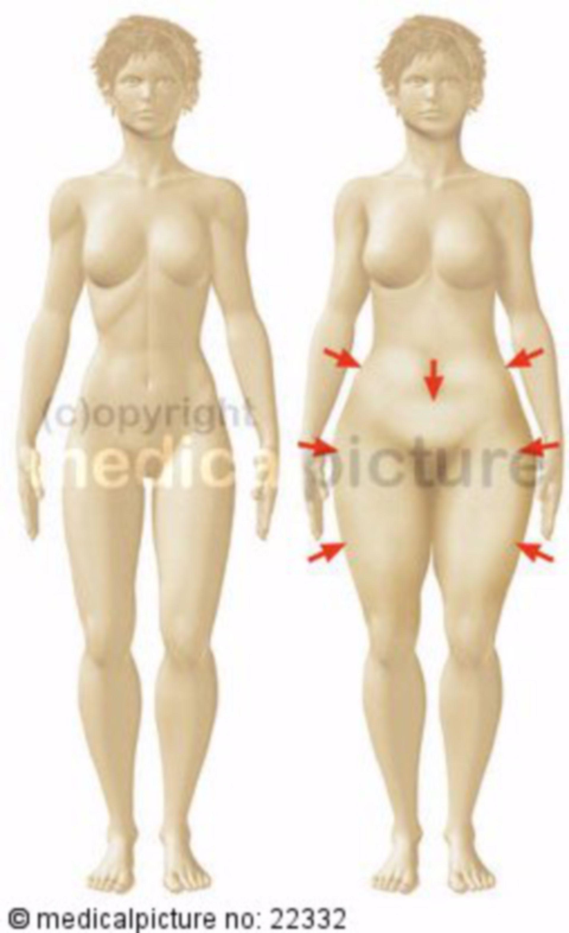 Zonen der Fettverteilung bei der Frau