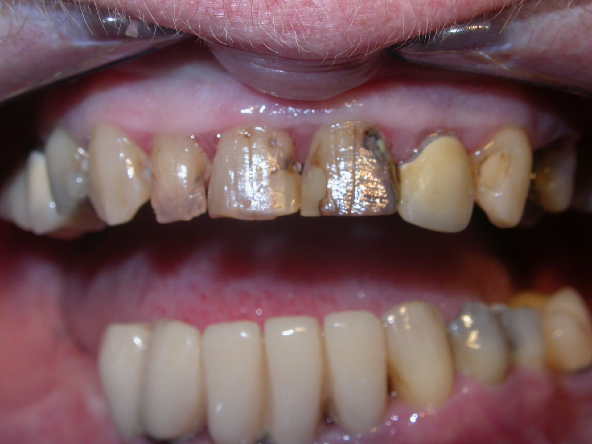 Cavità dentarie multiple