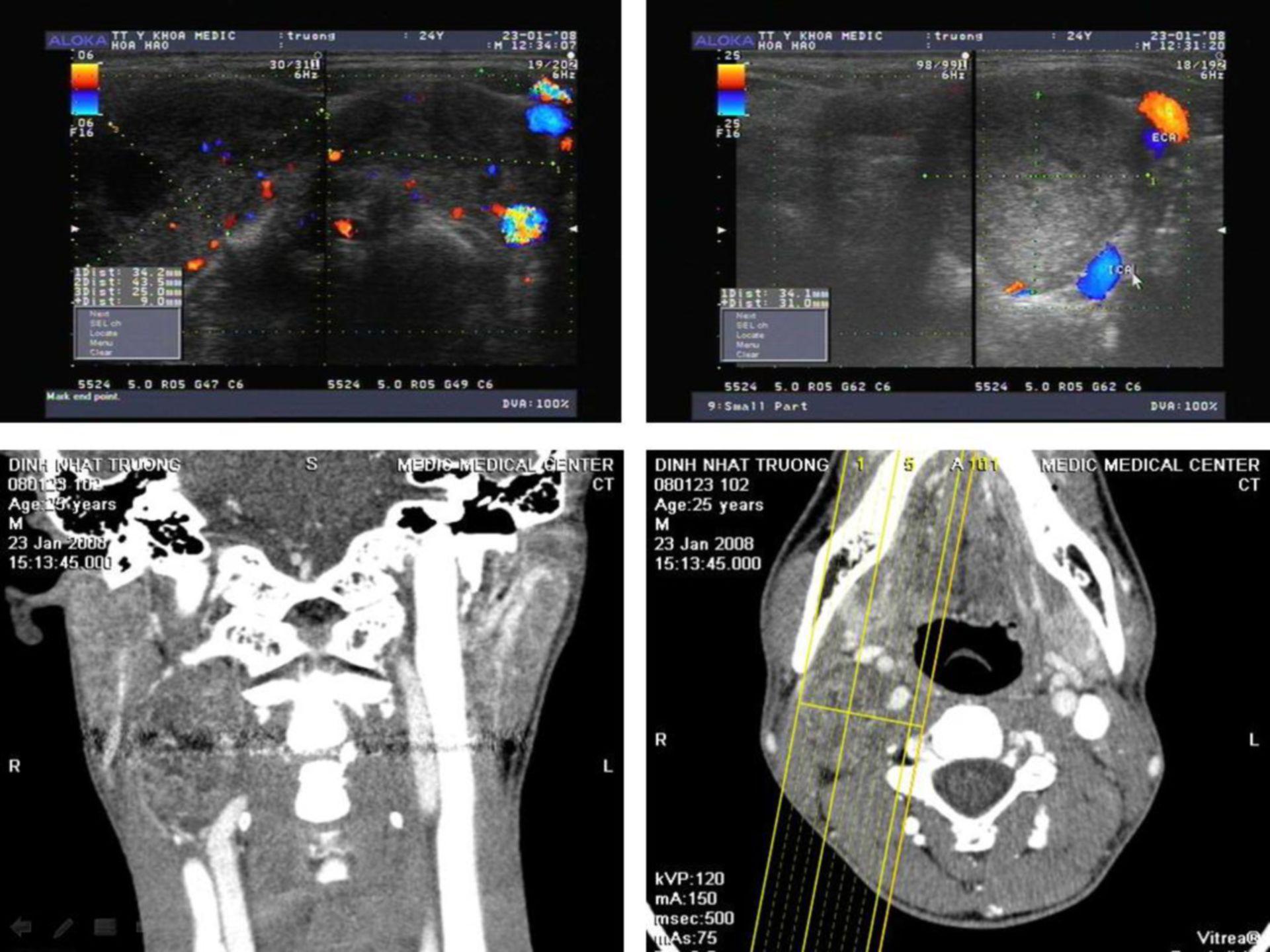 Tumor del glomus carotídeo