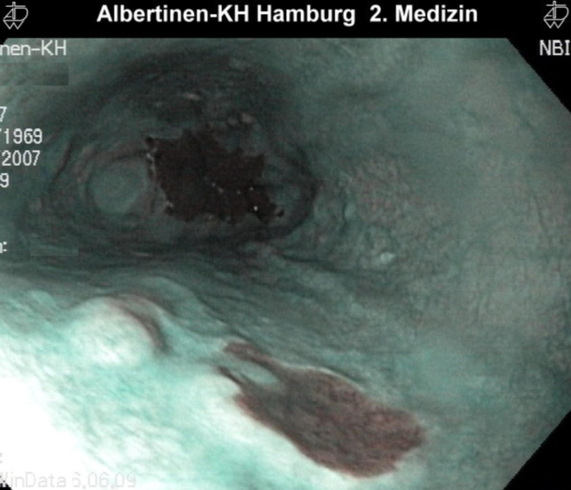 Metaplasia with NBI (narrow band imaging)