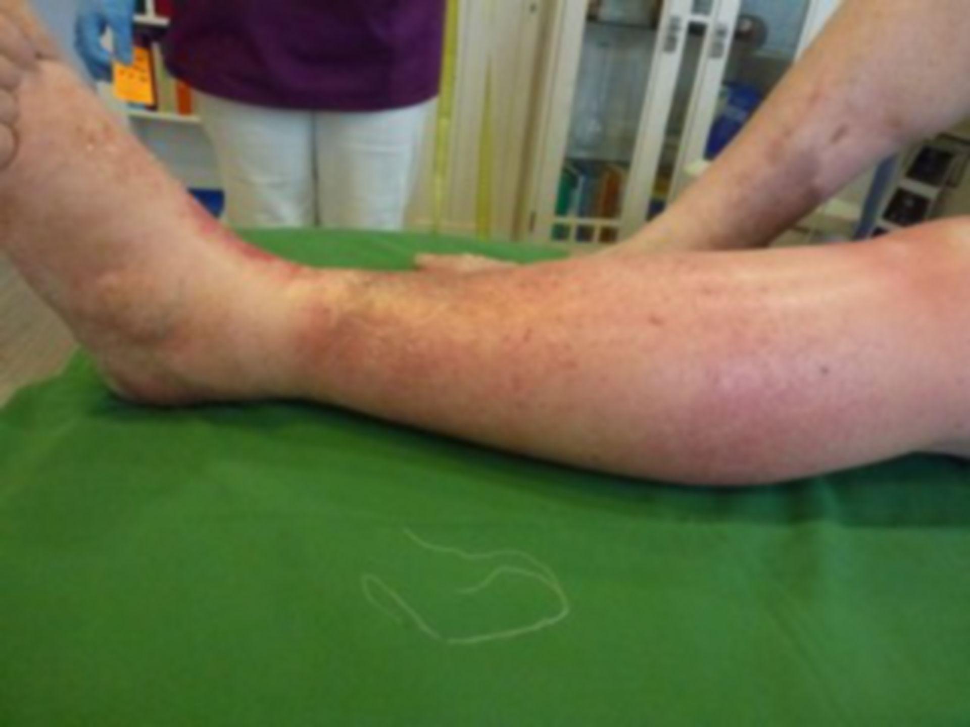 Úlcera de la pierna - Cerrada dentro de 72 horas (8)