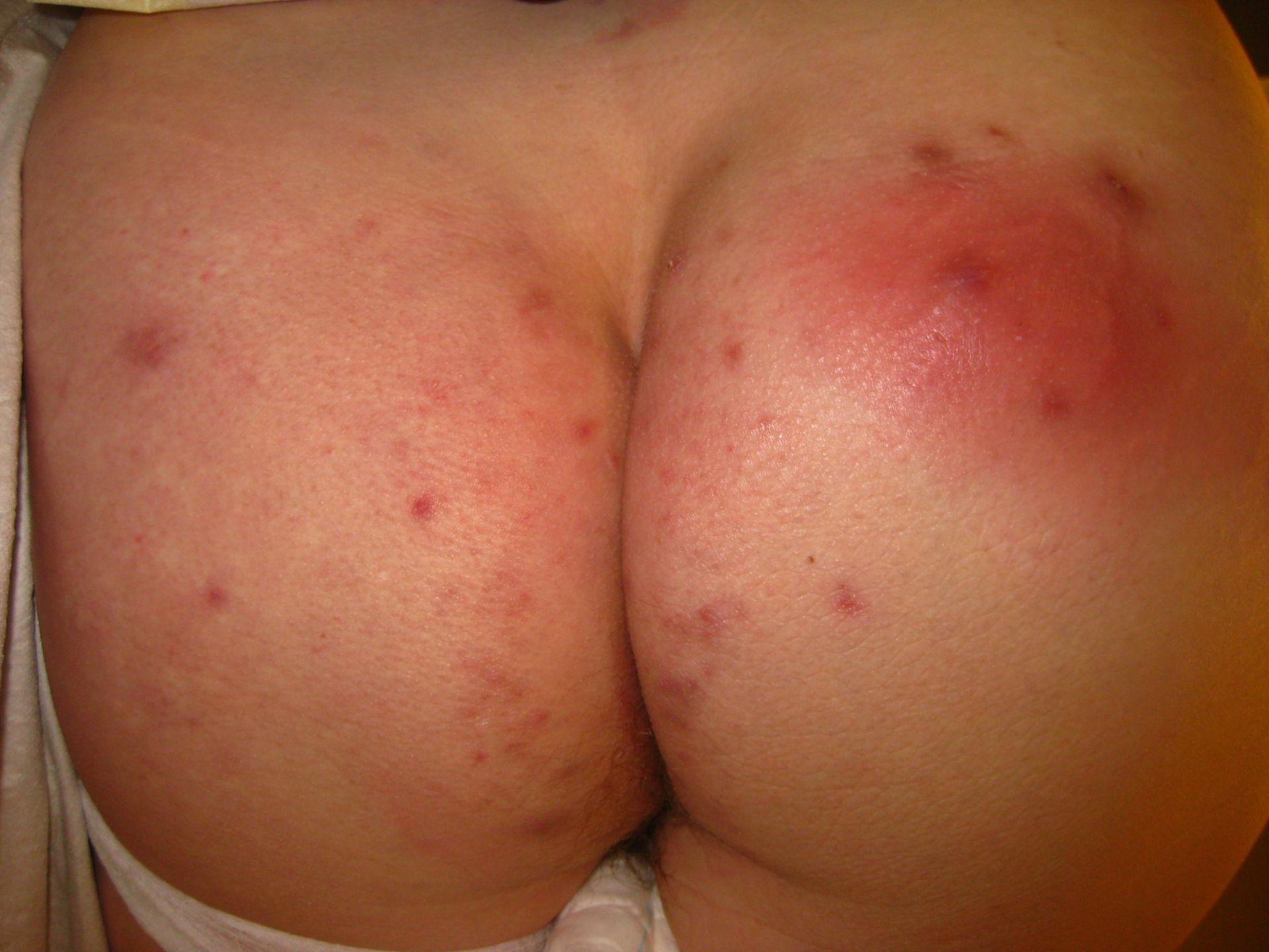 Acné inversa (Hidradenitis supurativa)