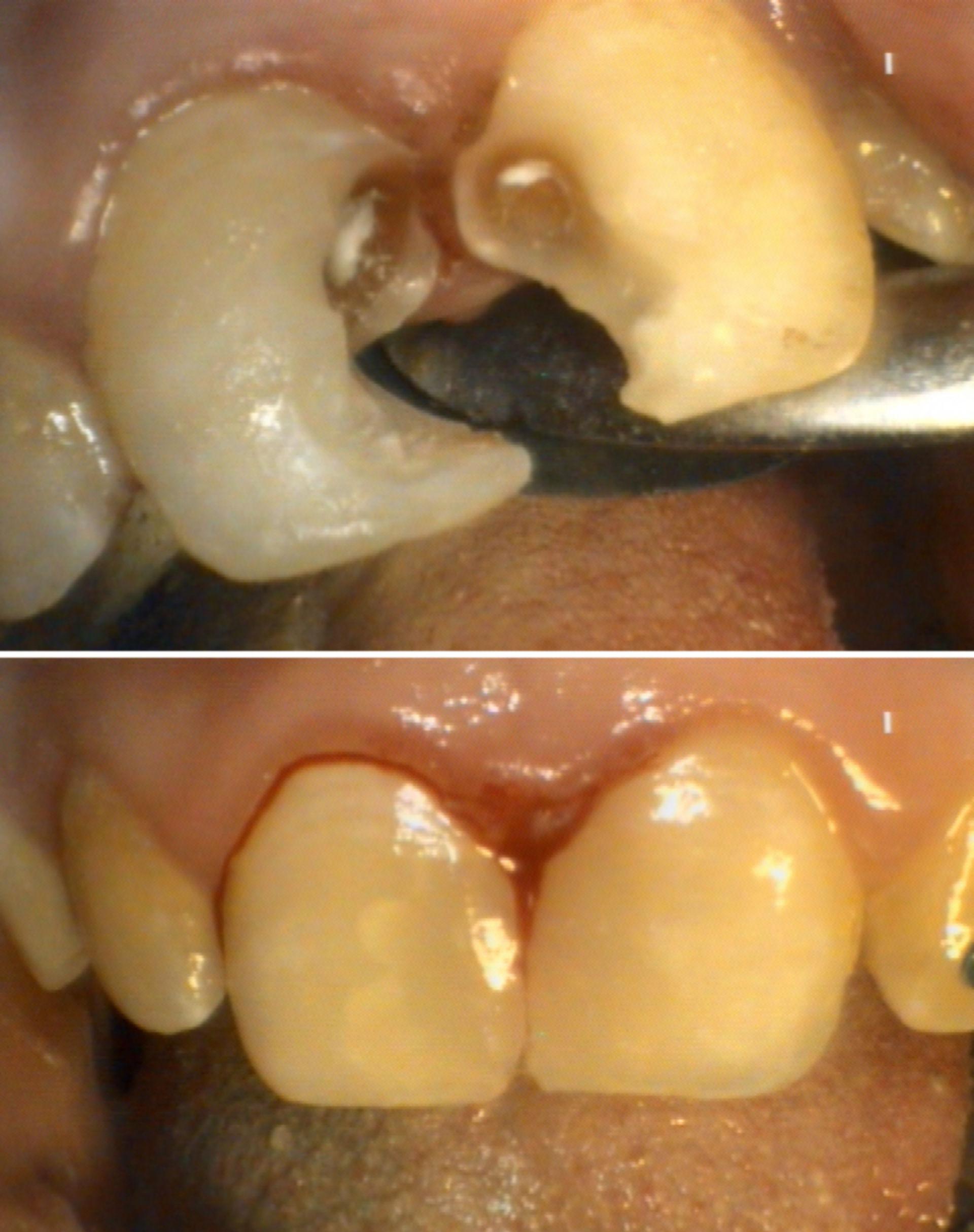 Dental restoration II