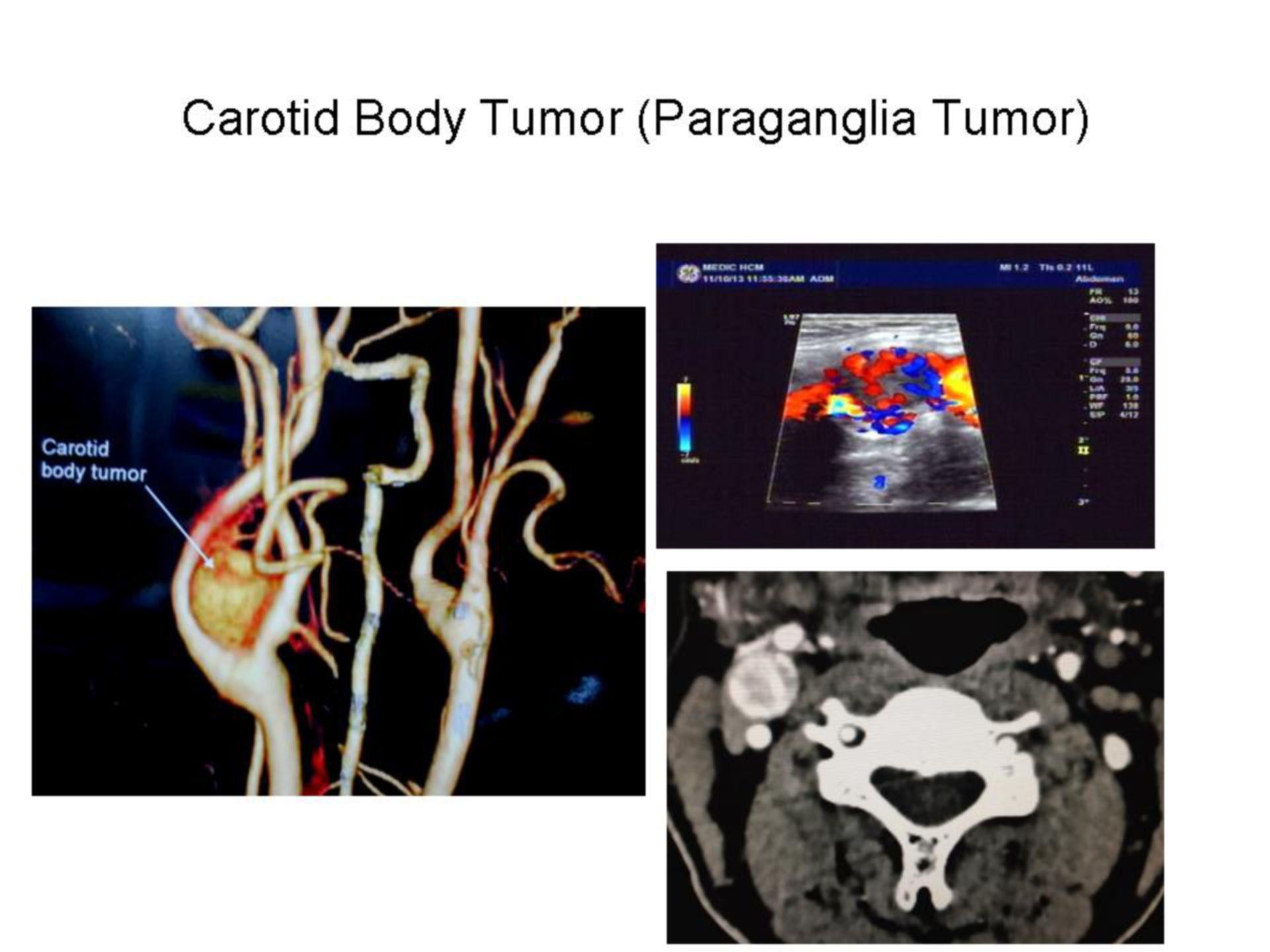 Carotid Body Tumor