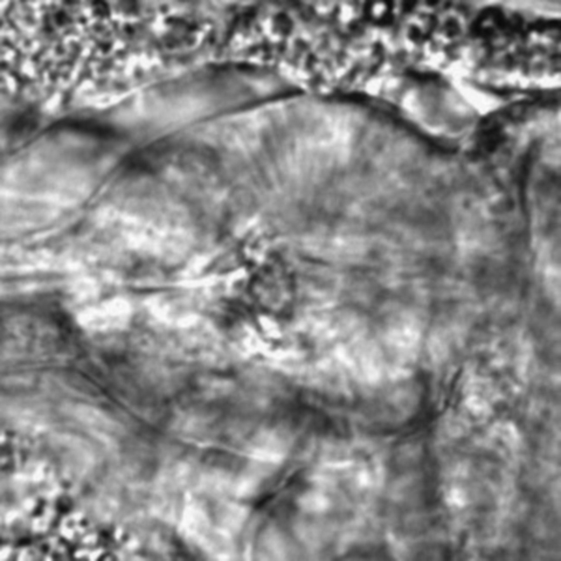 Caenorhabditis elegans - CIL:2204