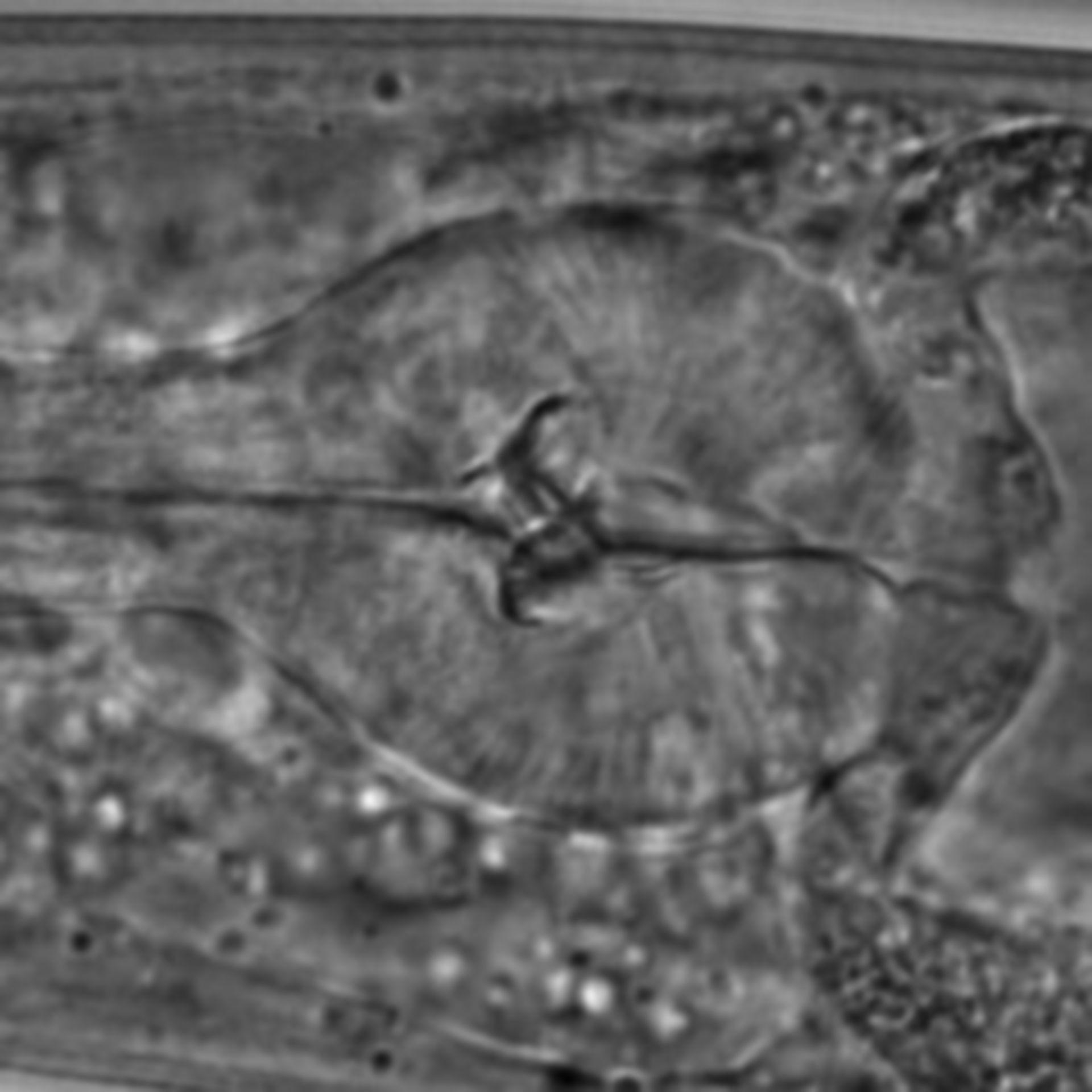 Caenorhabditis elegans - CIL:1620
