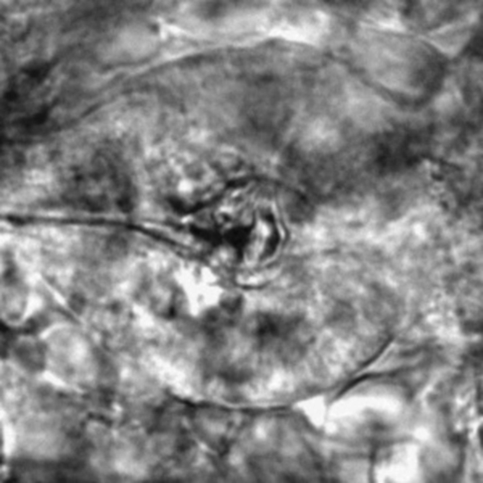 Caenorhabditis elegans - CIL:2214