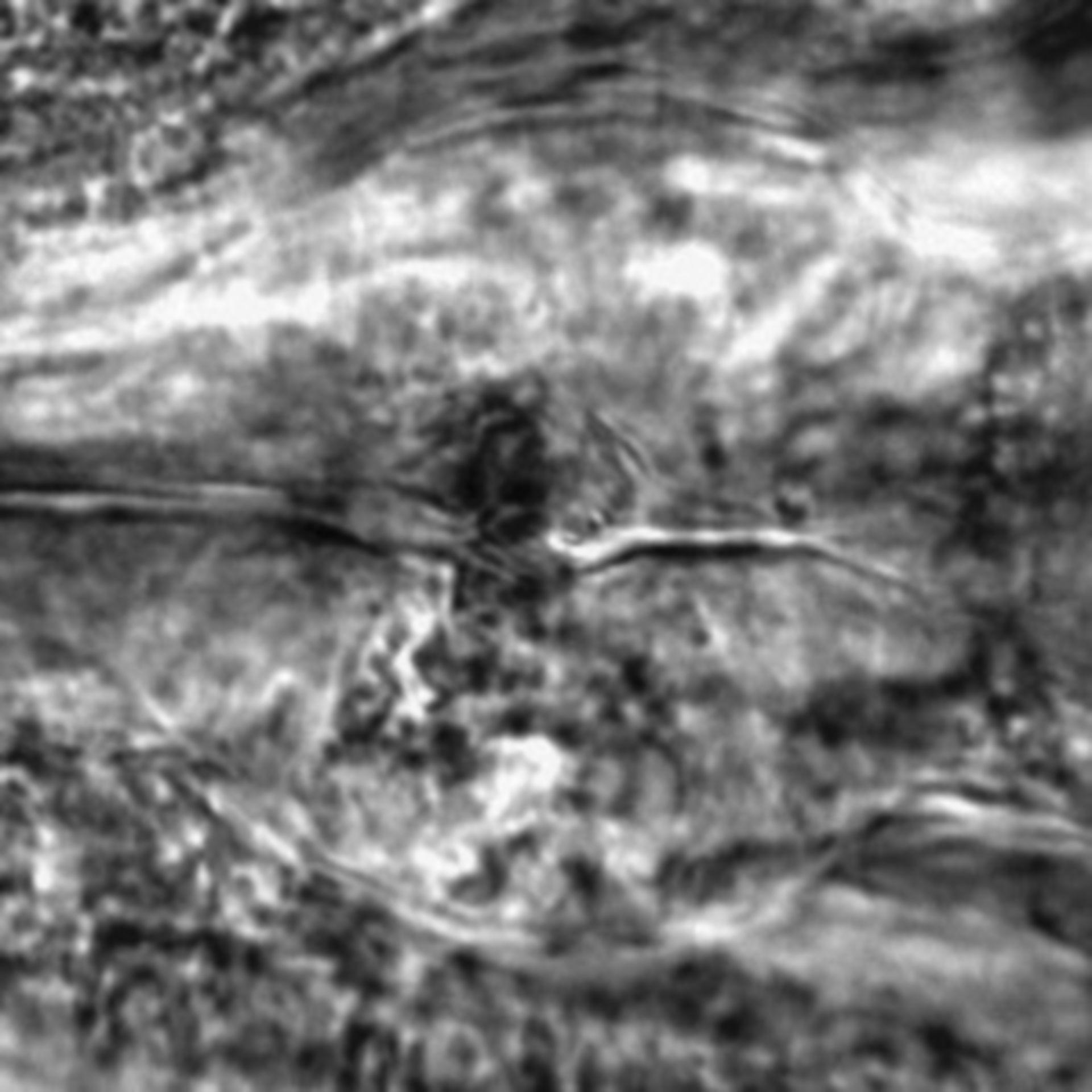 Caenorhabditis elegans - CIL:2241