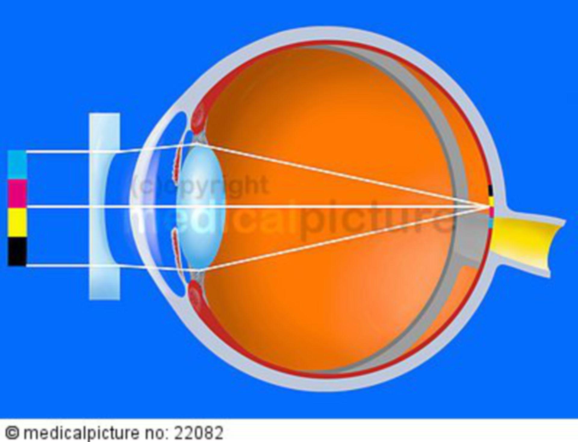 Correction of myopia