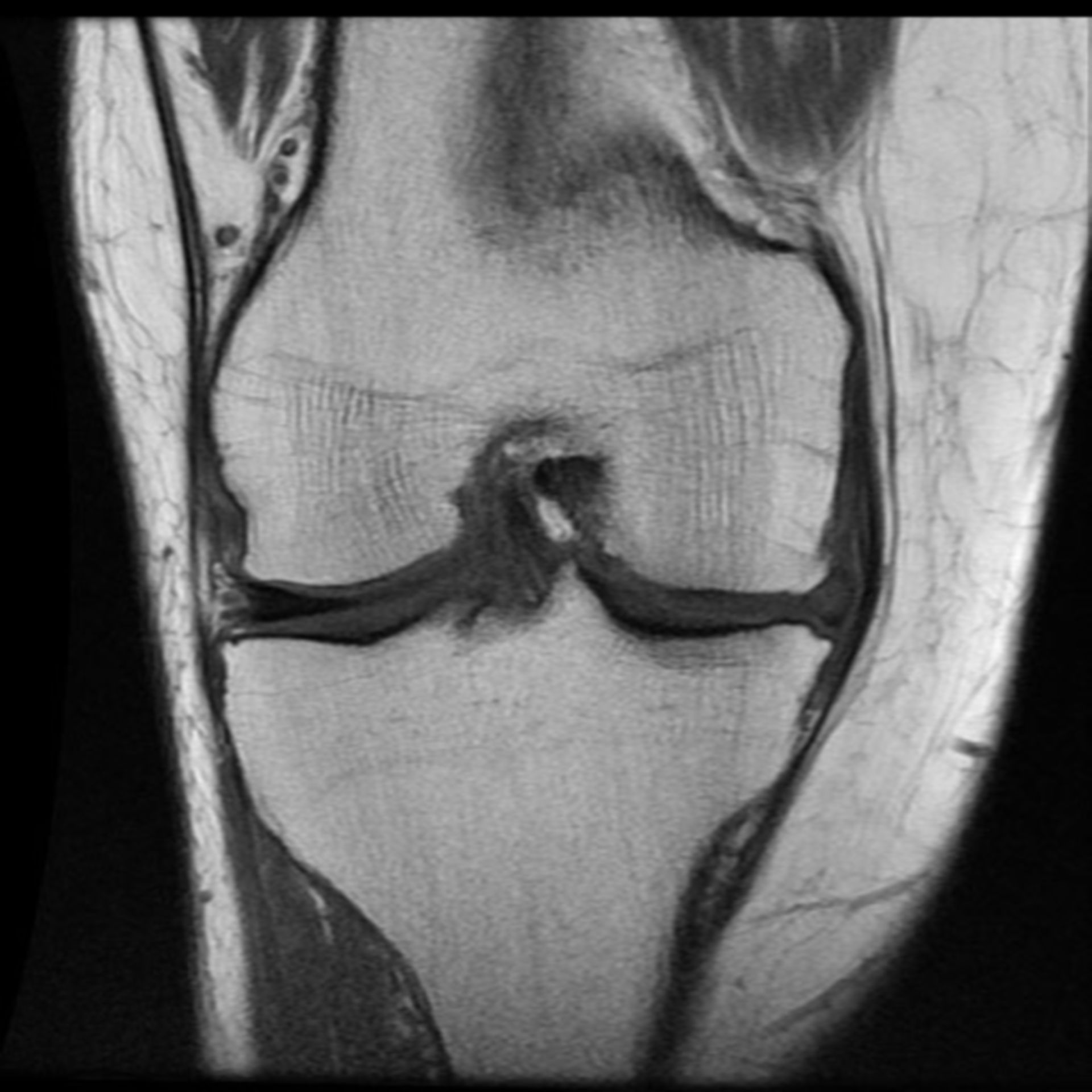 RM del ginocchio