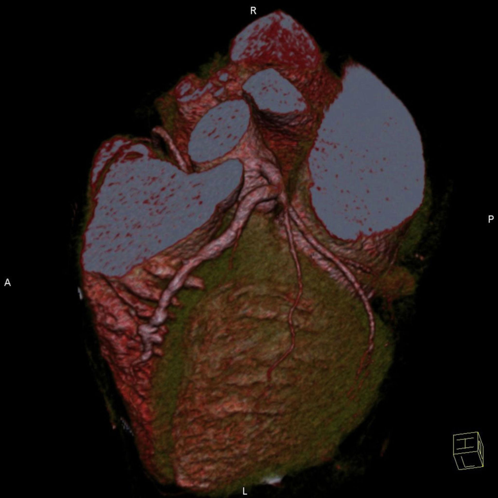 3D Darstellung - Herz
