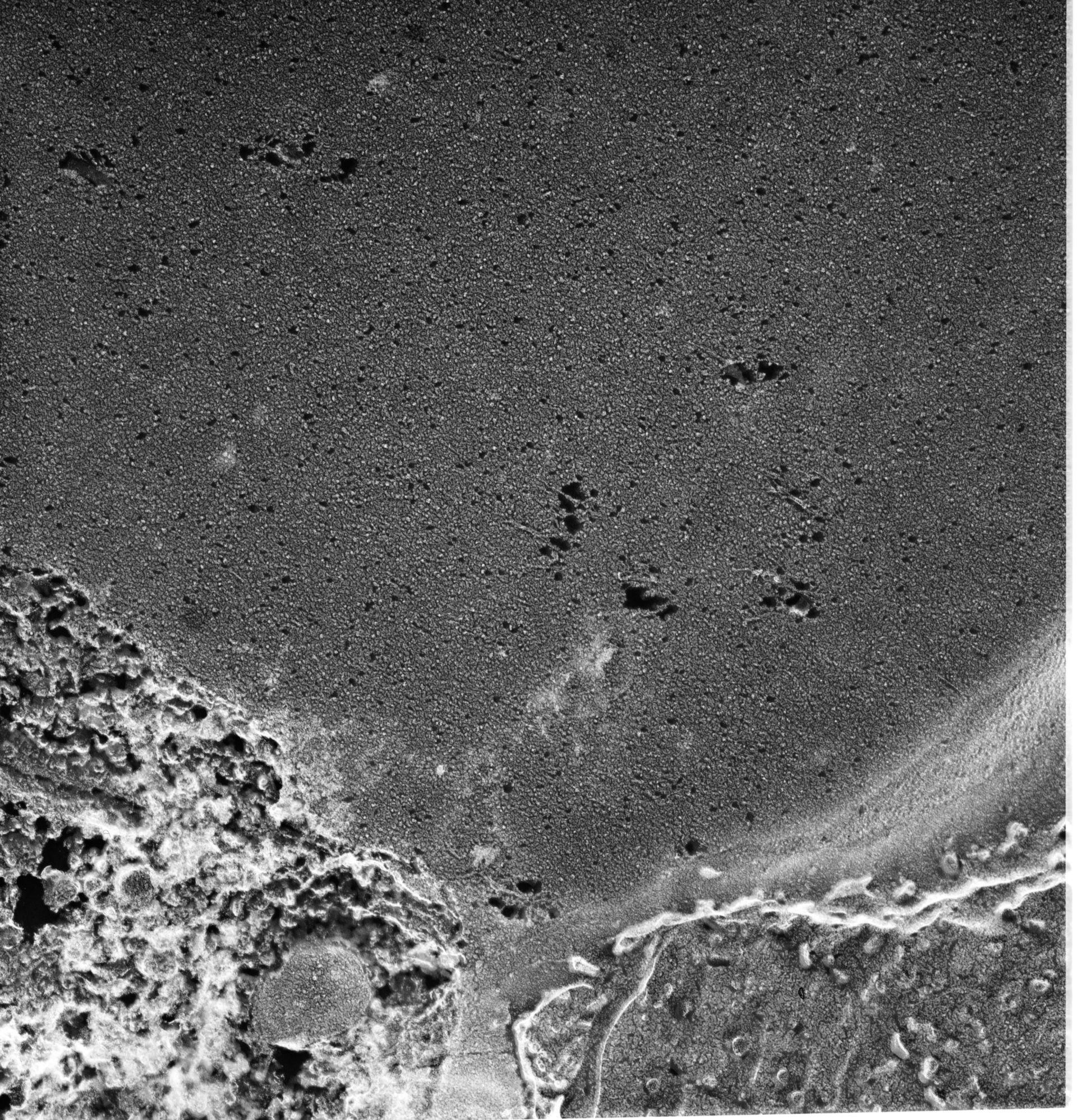 Paramecium multimicronucleatum (membrana vacuolare contrattile) - CIL:13128
