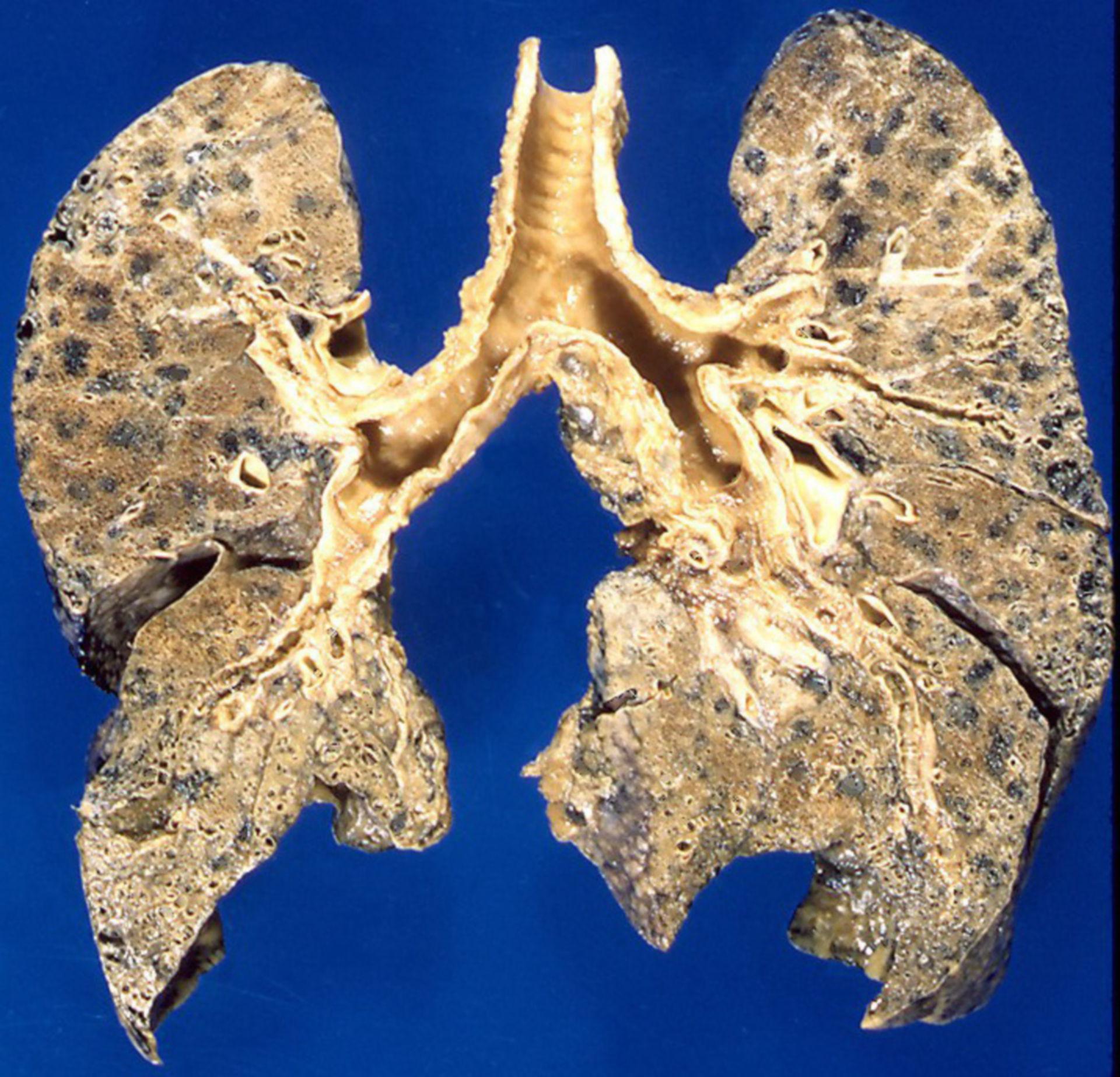 Zentrilobuläres Emphysem (Präparat)