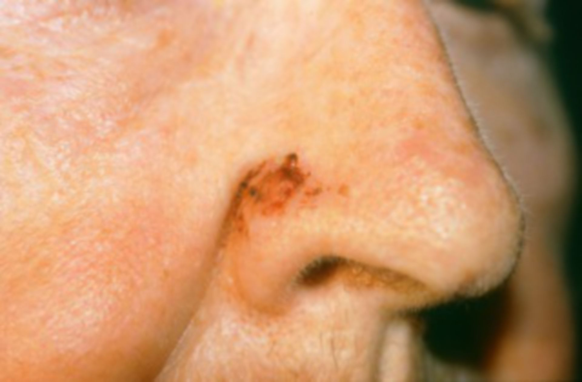 Skin cancer ala of the nose