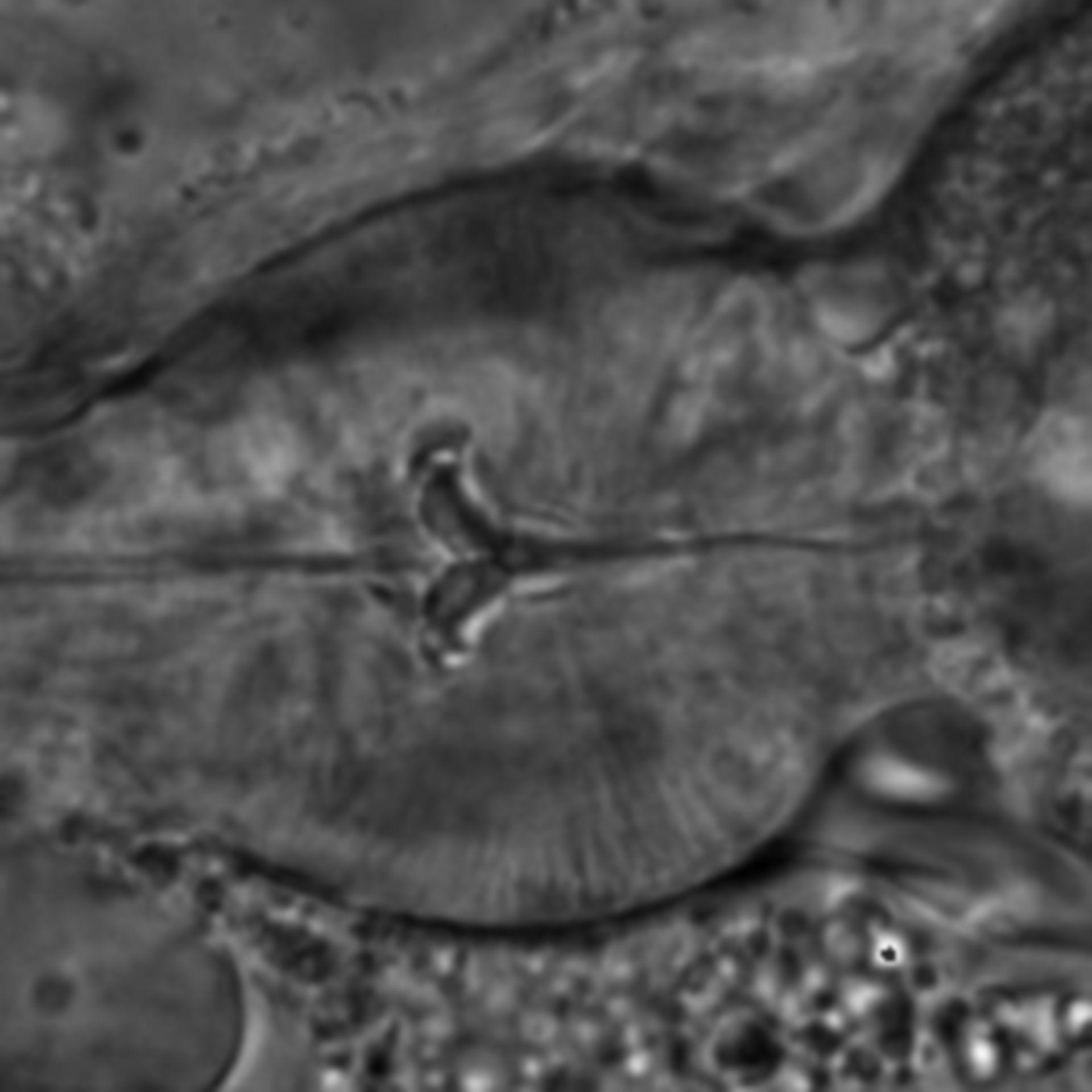 Caenorhabditis elegans - CIL:1745