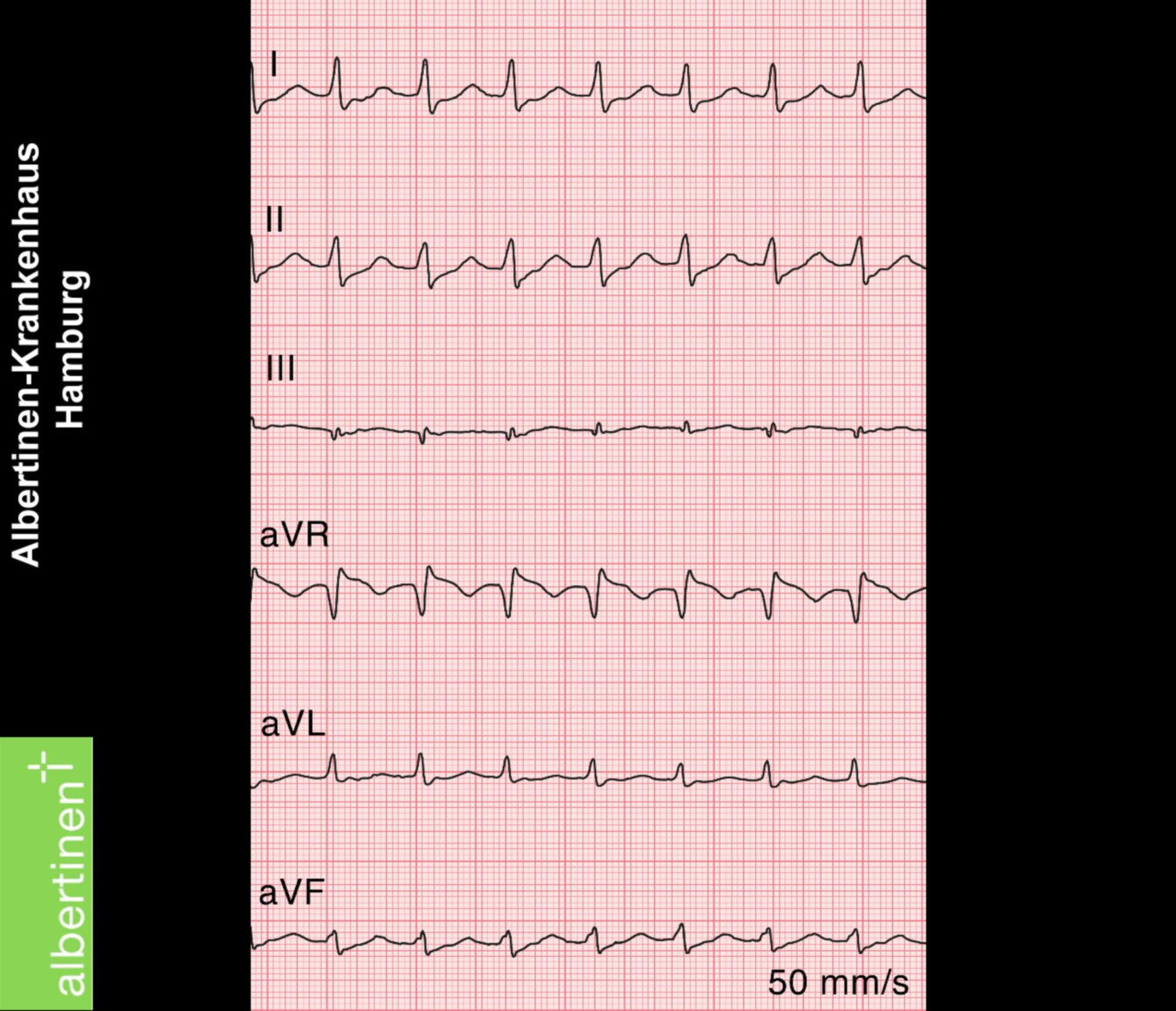 AV node reentry tachycardia (ECG)