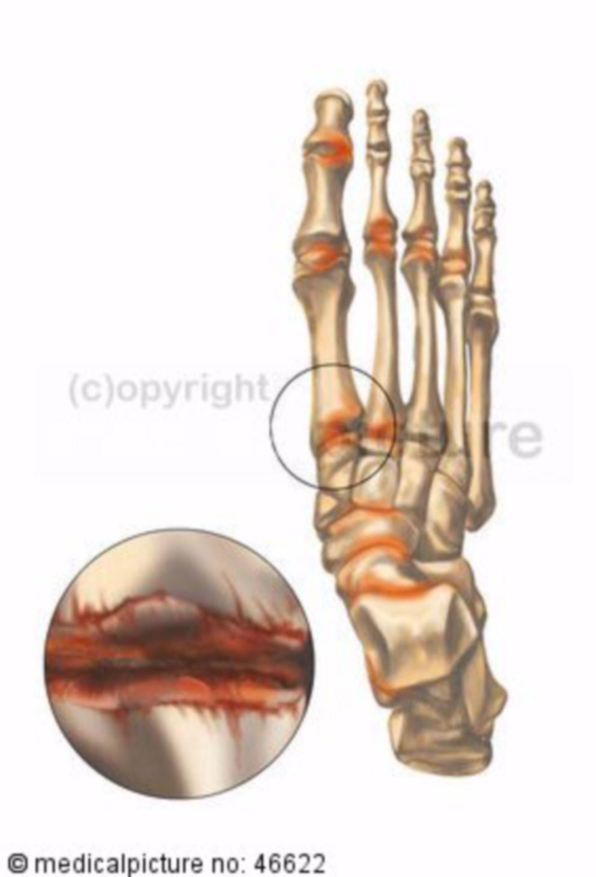 Menschliches Fußskelett mit Arthritis