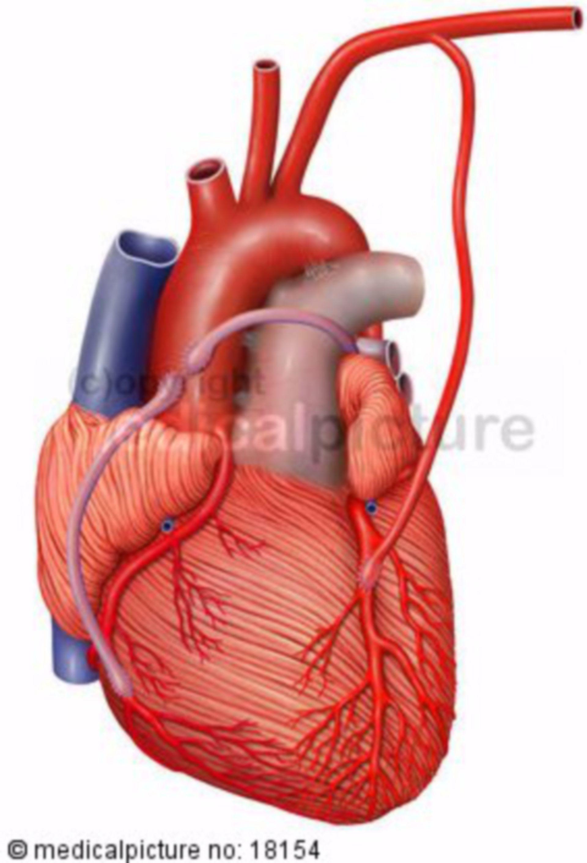 Cuore, arterie coronarie con bypass