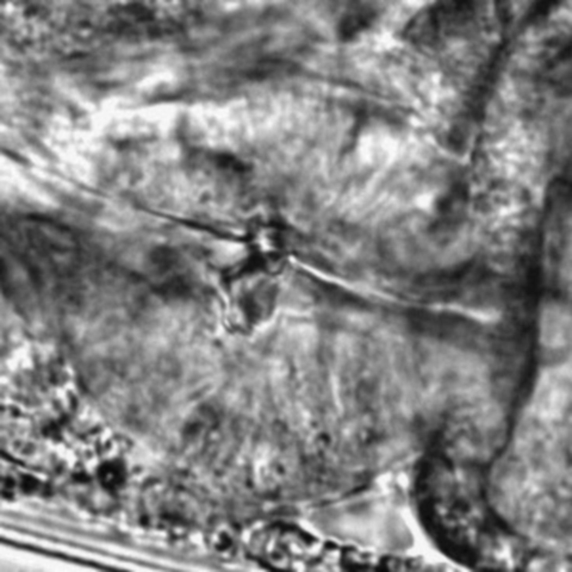 Caenorhabditis elegans - CIL:2162