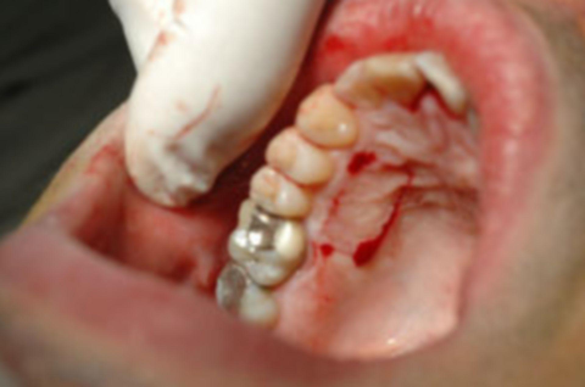 Intraoraler Befund bei Erhebung des Zahnstatus